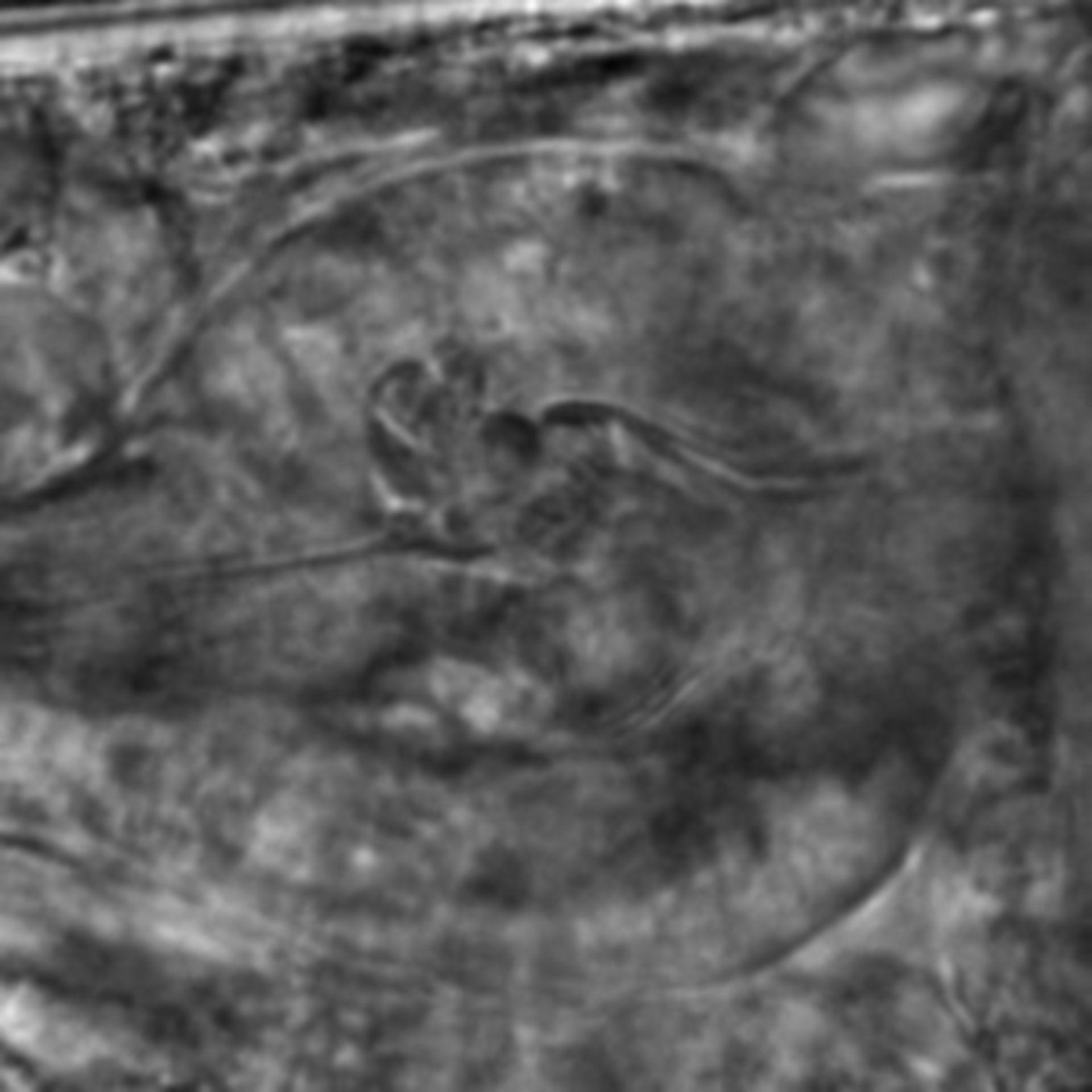 Caenorhabditis elegans - CIL:2818