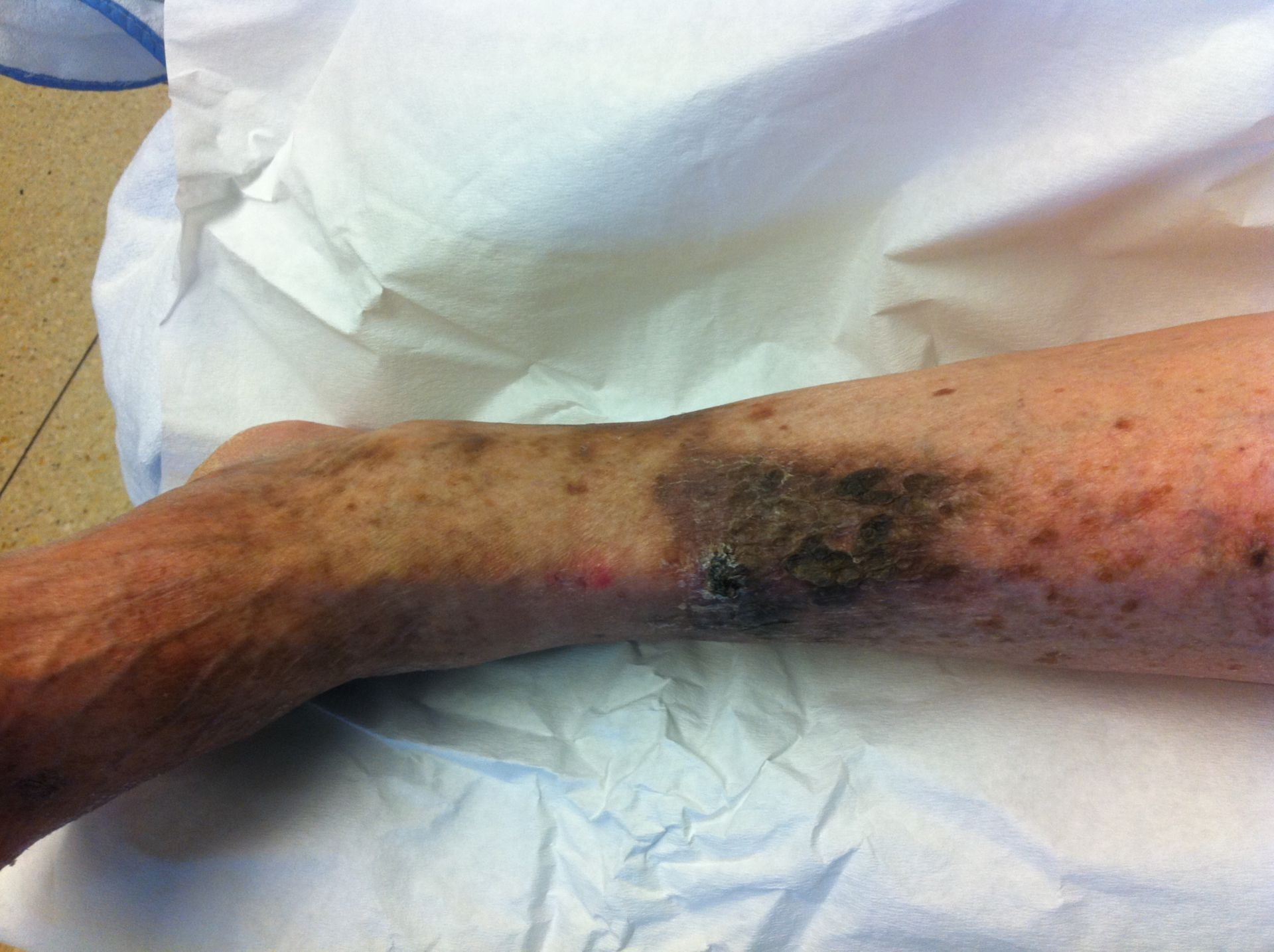 Ulcera crusis
