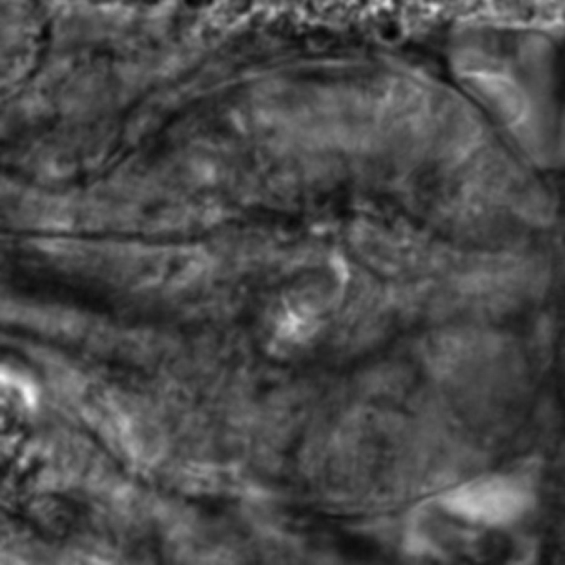 Caenorhabditis elegans - CIL:2553