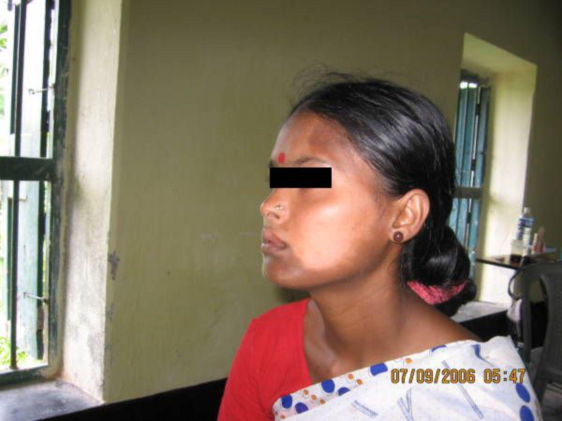 Leprosy (2)