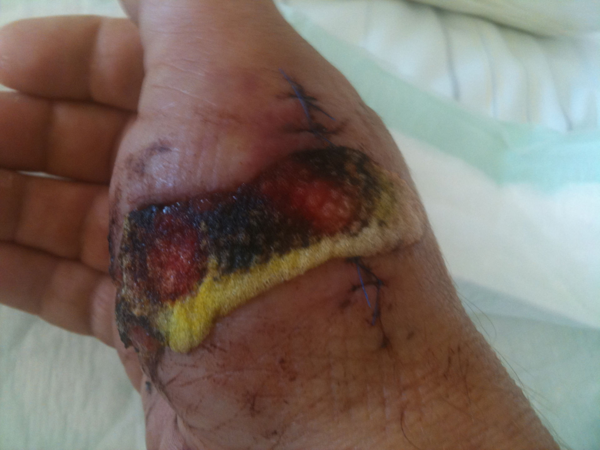 Deposition in the wound