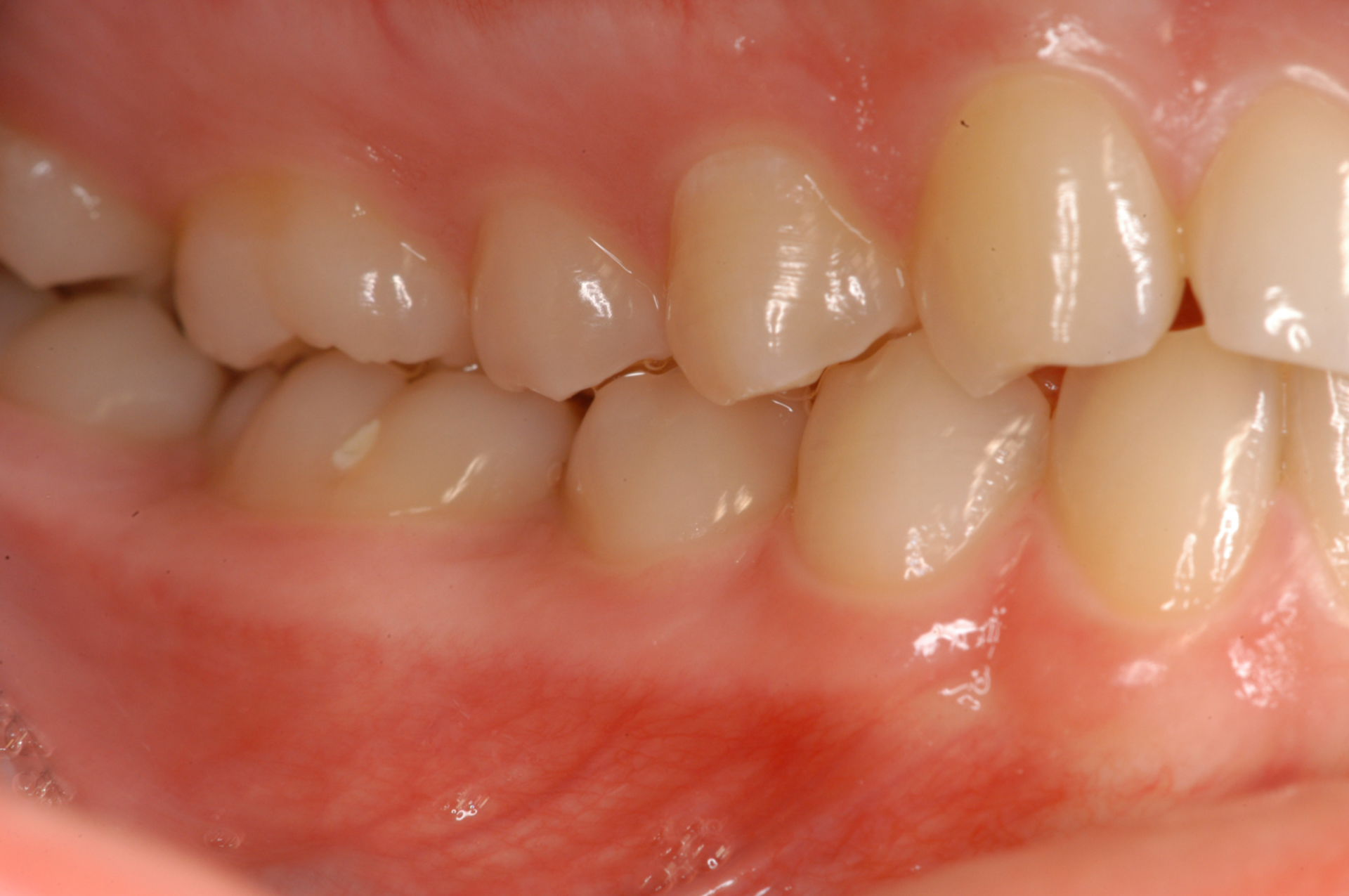 Denti sani per carie a sinistra