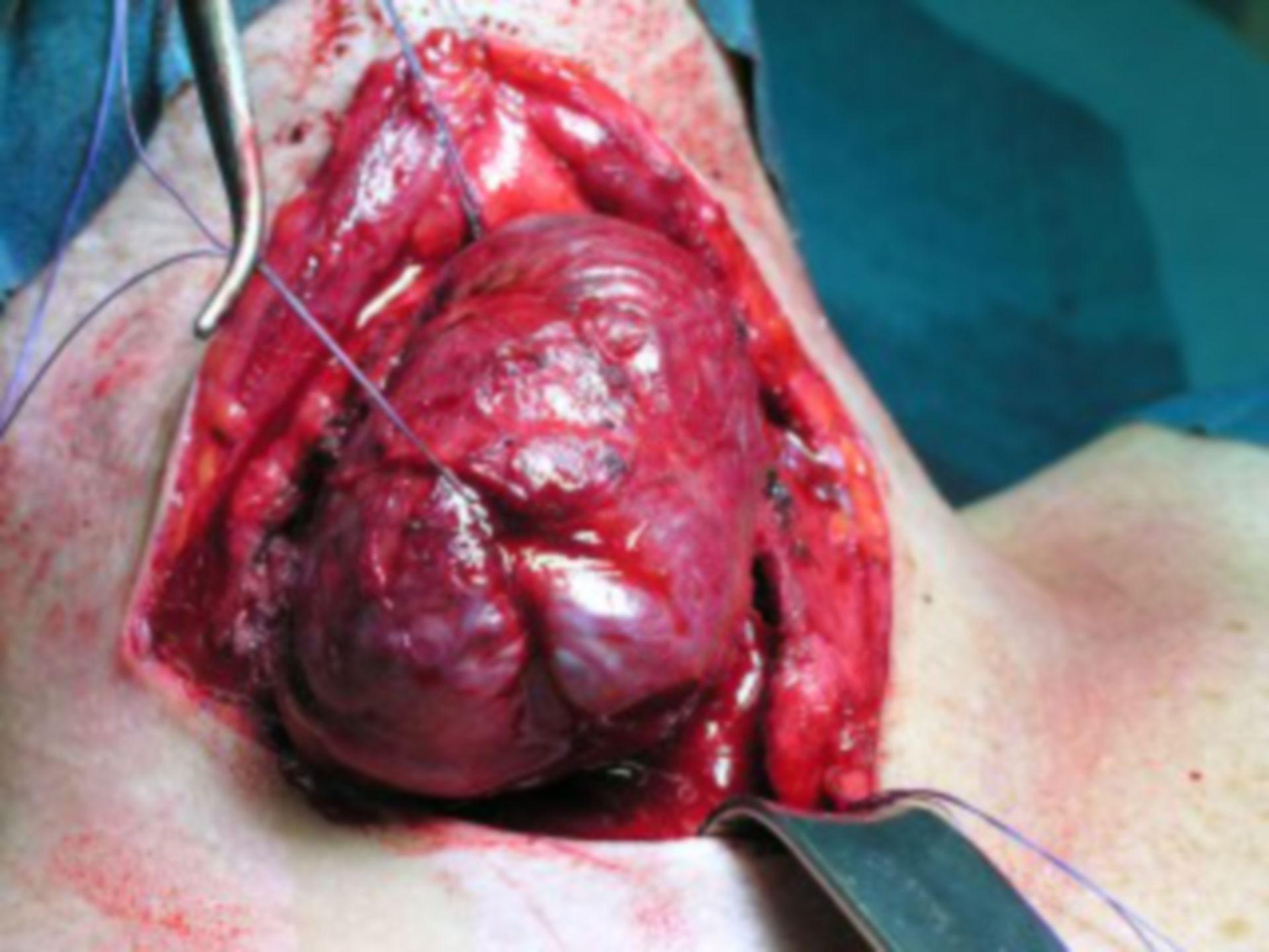 Preparation Left Thyroid Gland