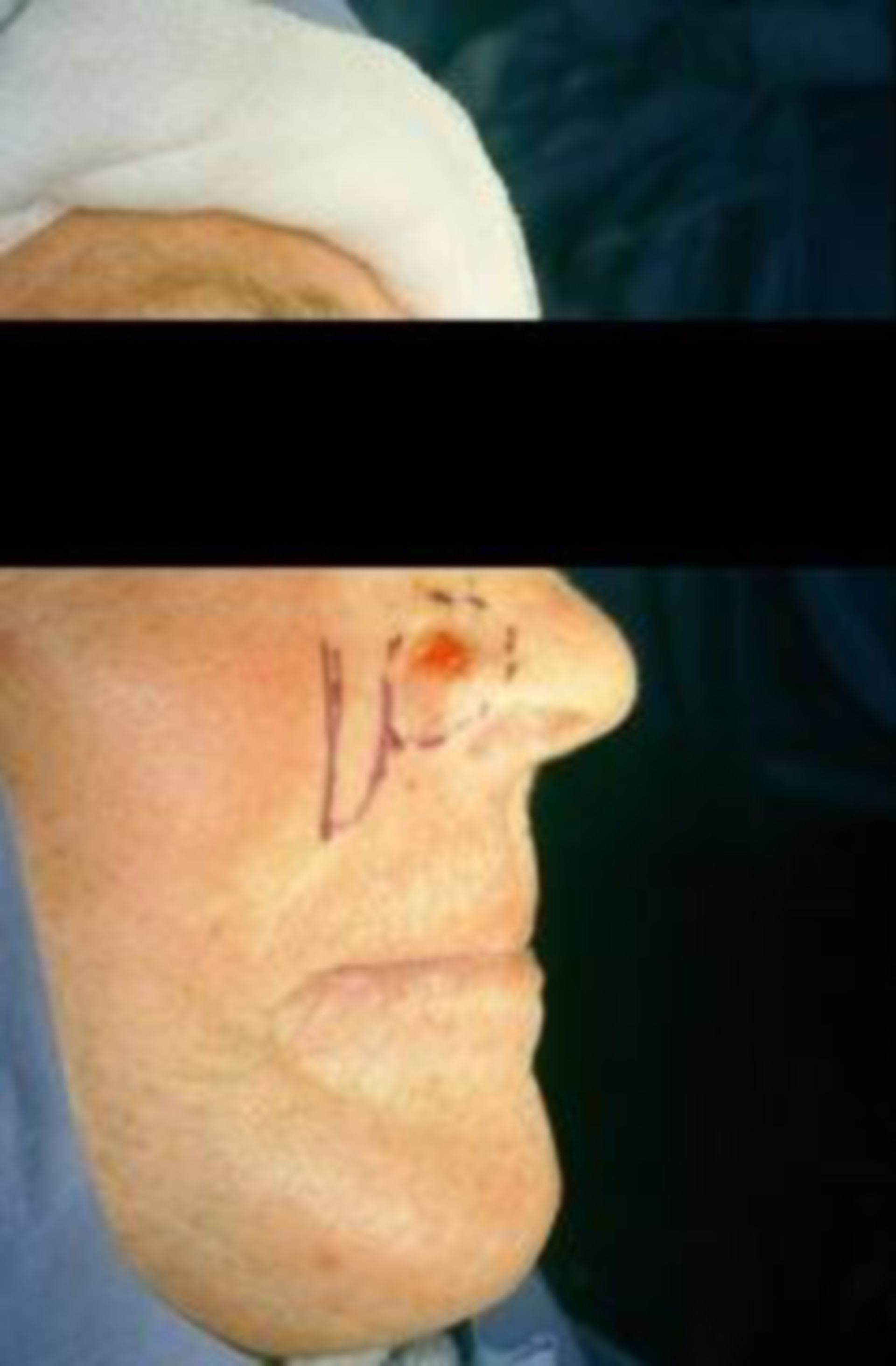 Hautkrebs Nasenflügel