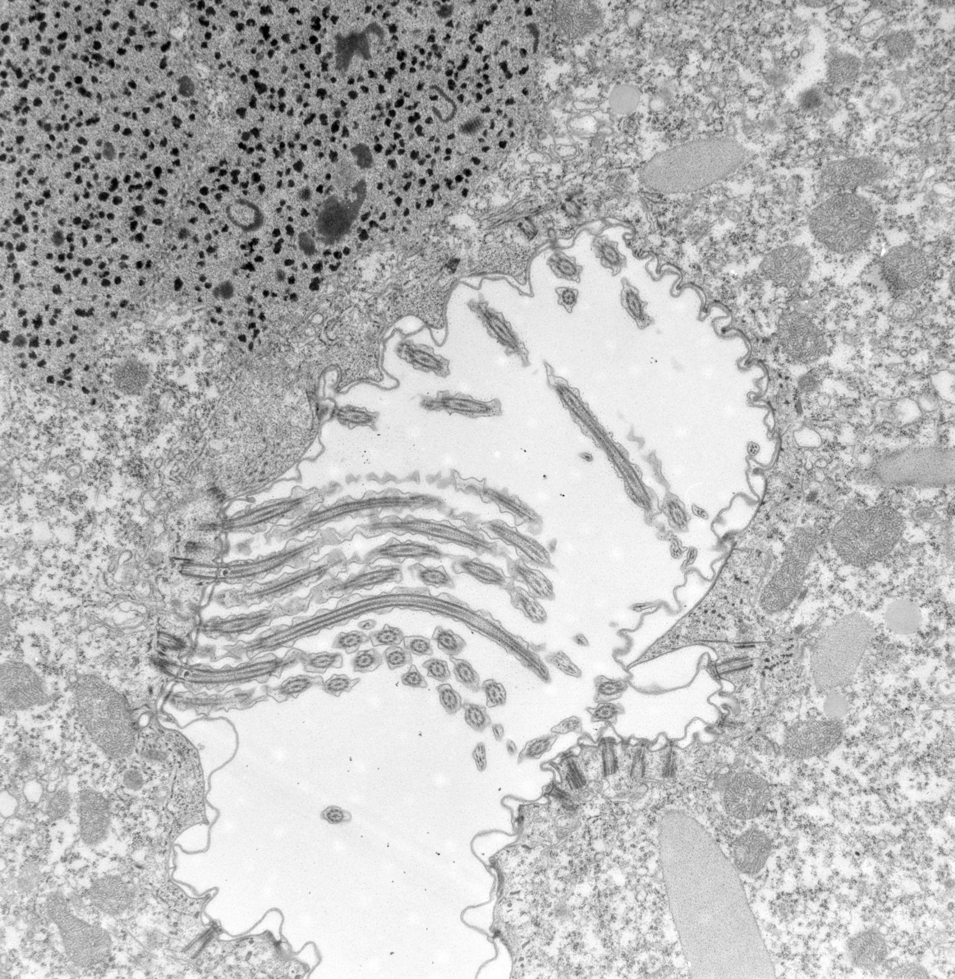 Paramecium caudatum (apparato orale) - CIL:39156