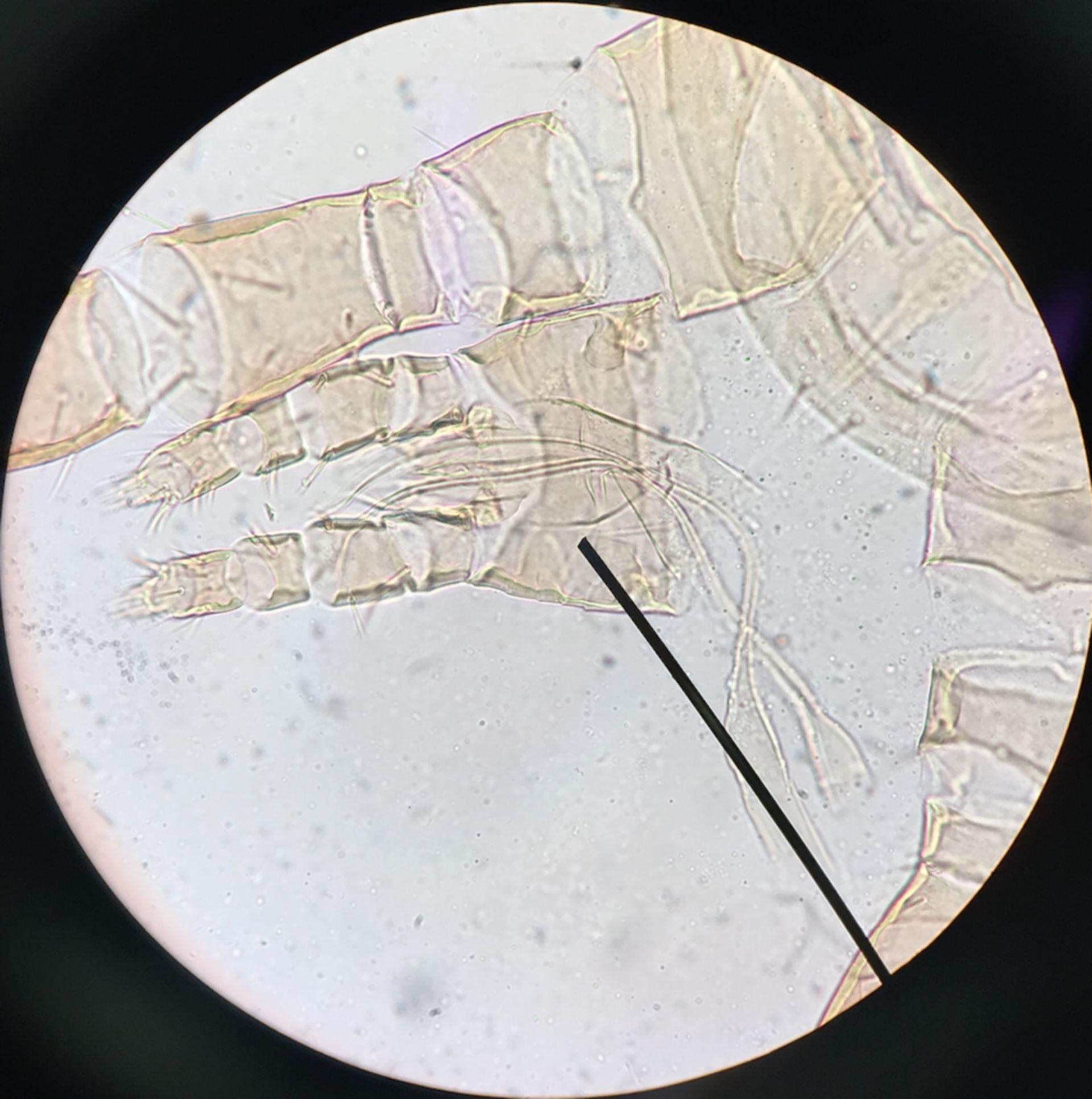 Dermanyssus gallinae (3/3)