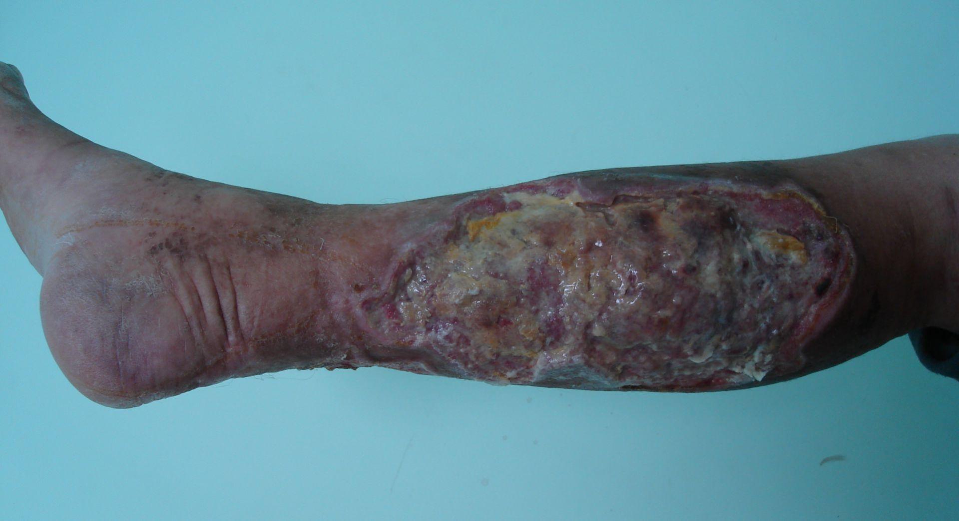 Ulcus trophicum.Rauschgiftsucht.HIV+