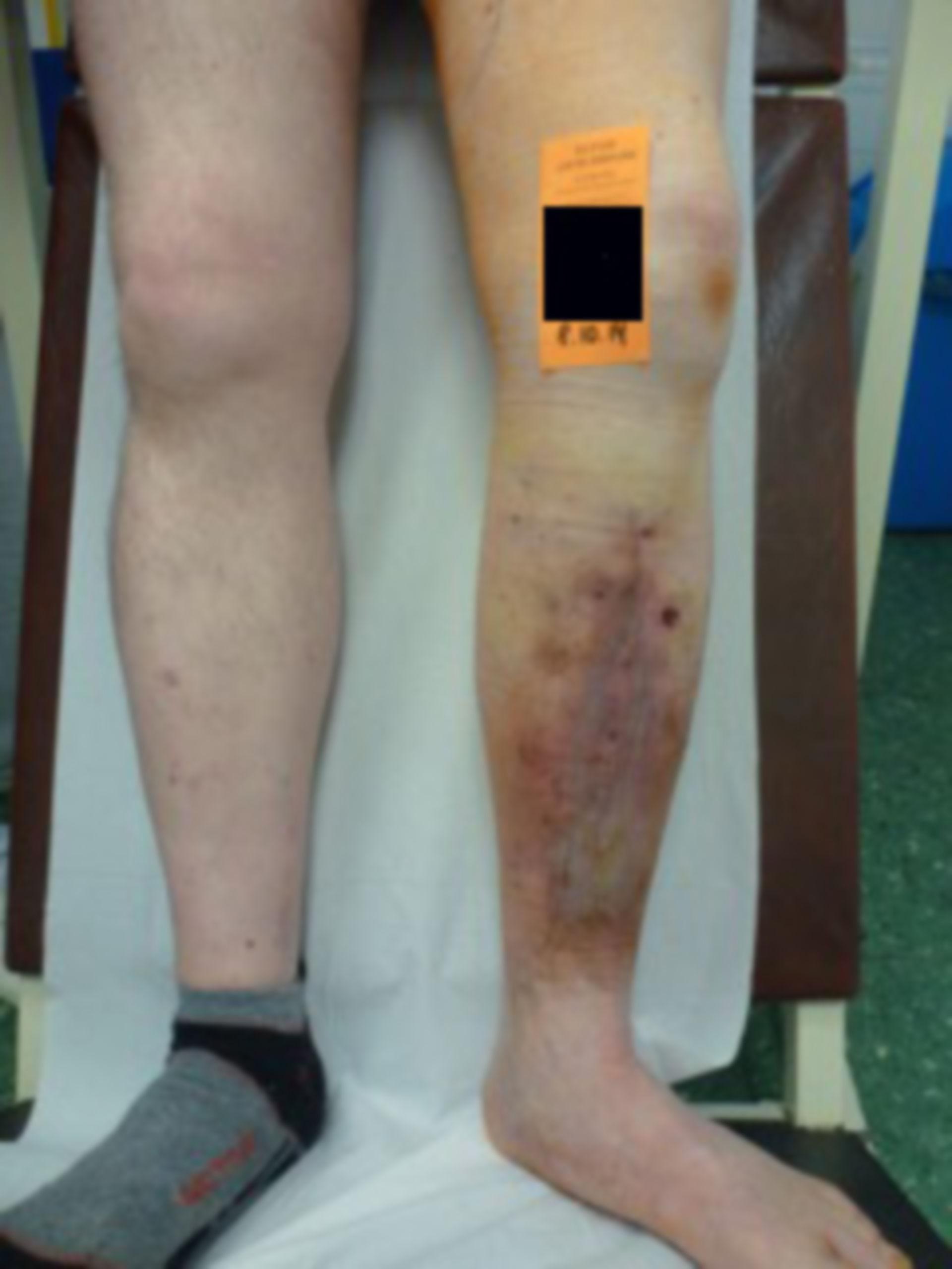 Úlcera de la pierna - abierta por 20 años: día 9 después de la operación (13)