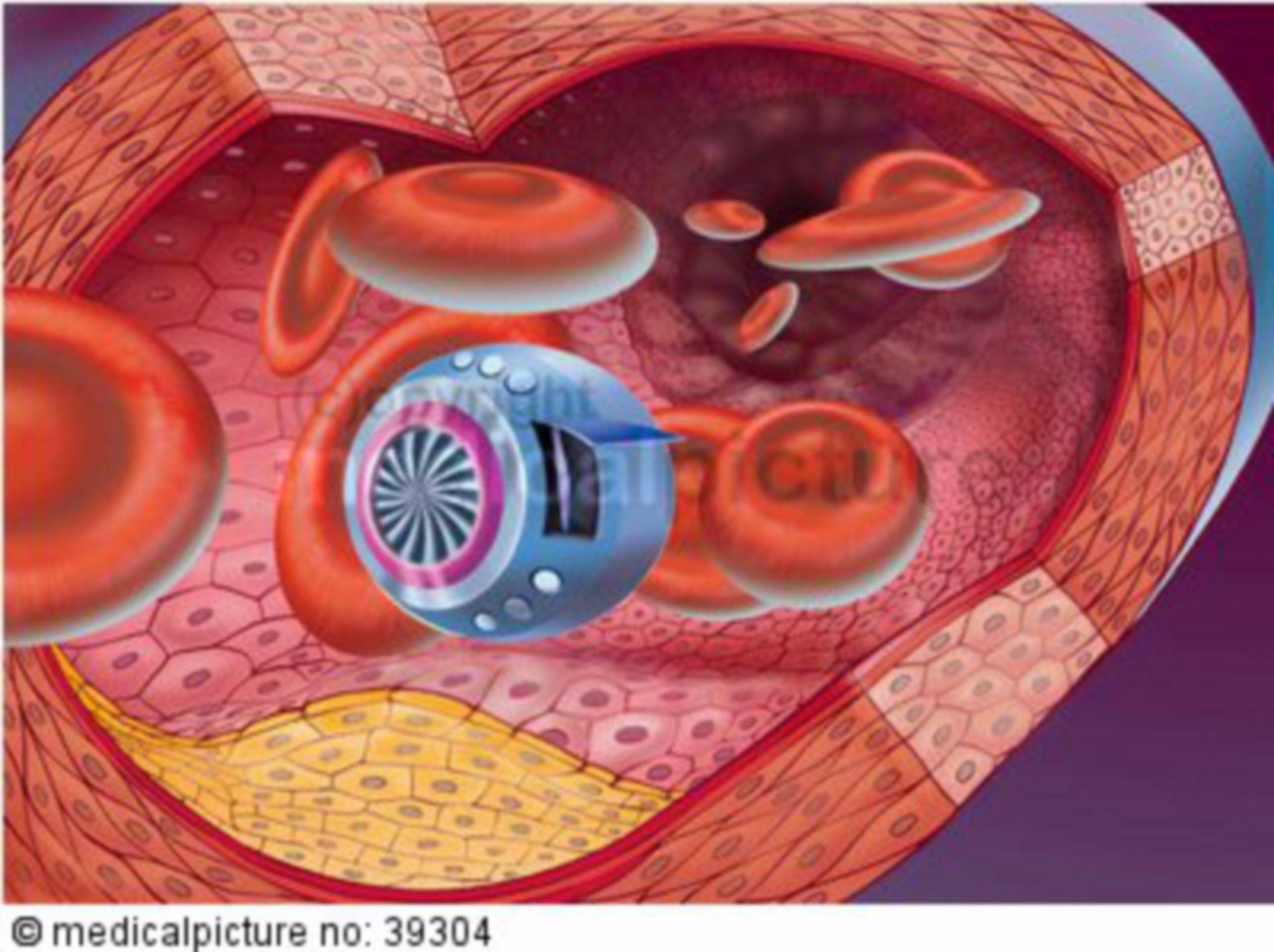 Nanoroboter der Arterienreinigung, Nanorobot