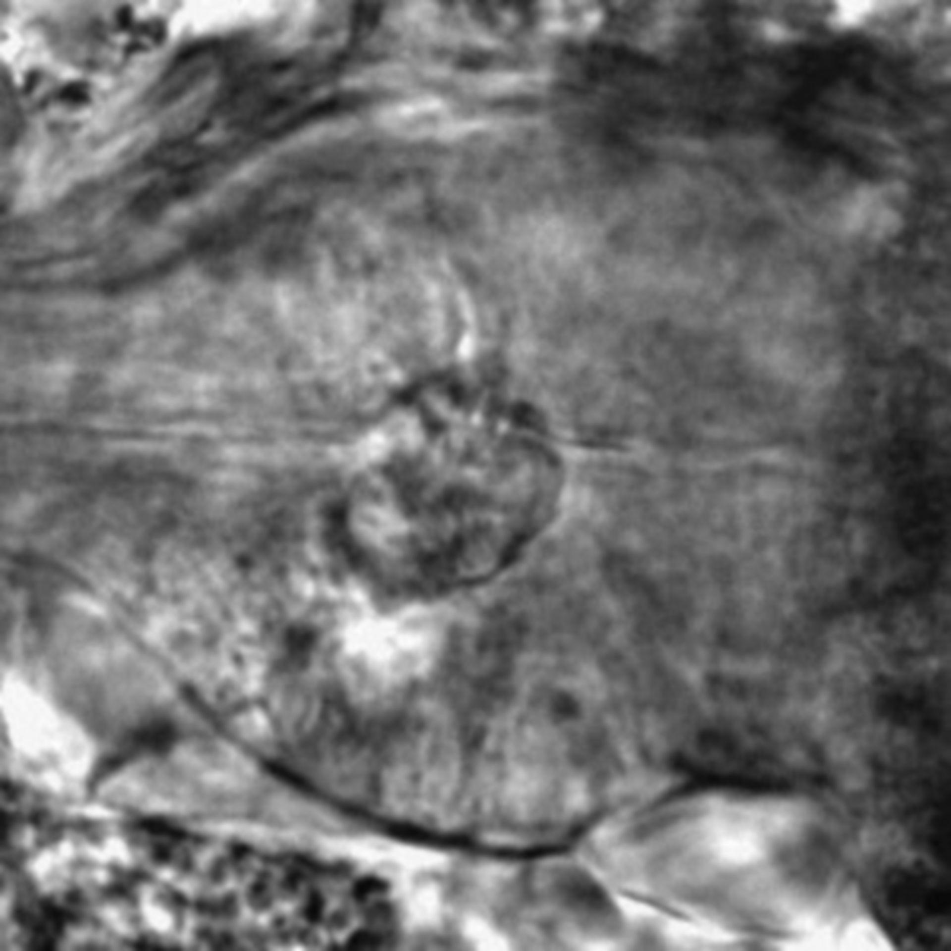 Caenorhabditis elegans - CIL:2249
