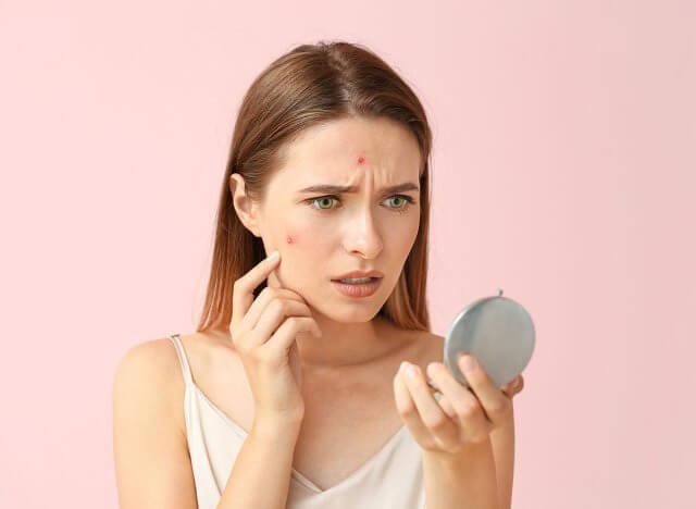 woman-with-acne_original.jpg