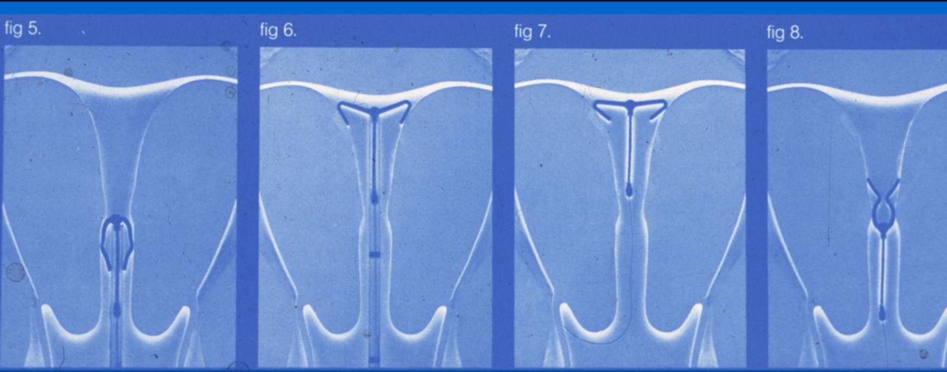 Flexi-T - dispositivo intrauterino