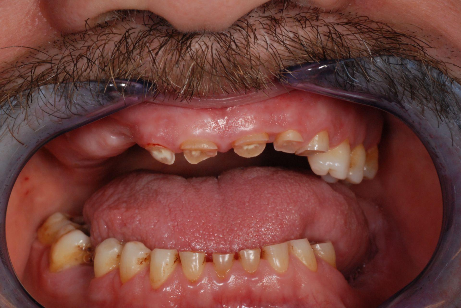 Grave abrasione dei denti anteriori