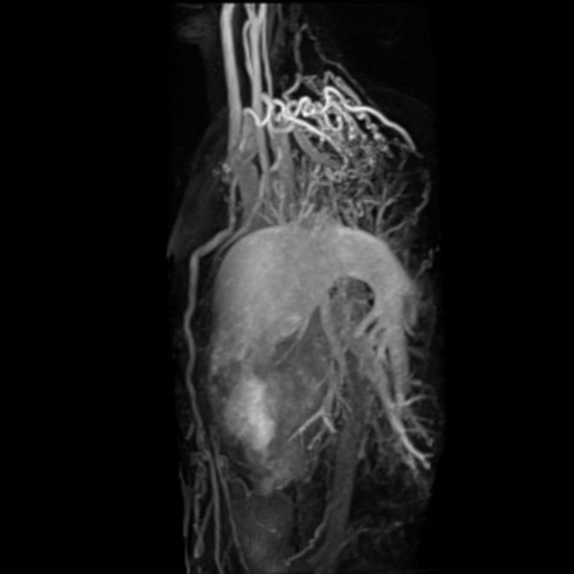 MR-Angiographie