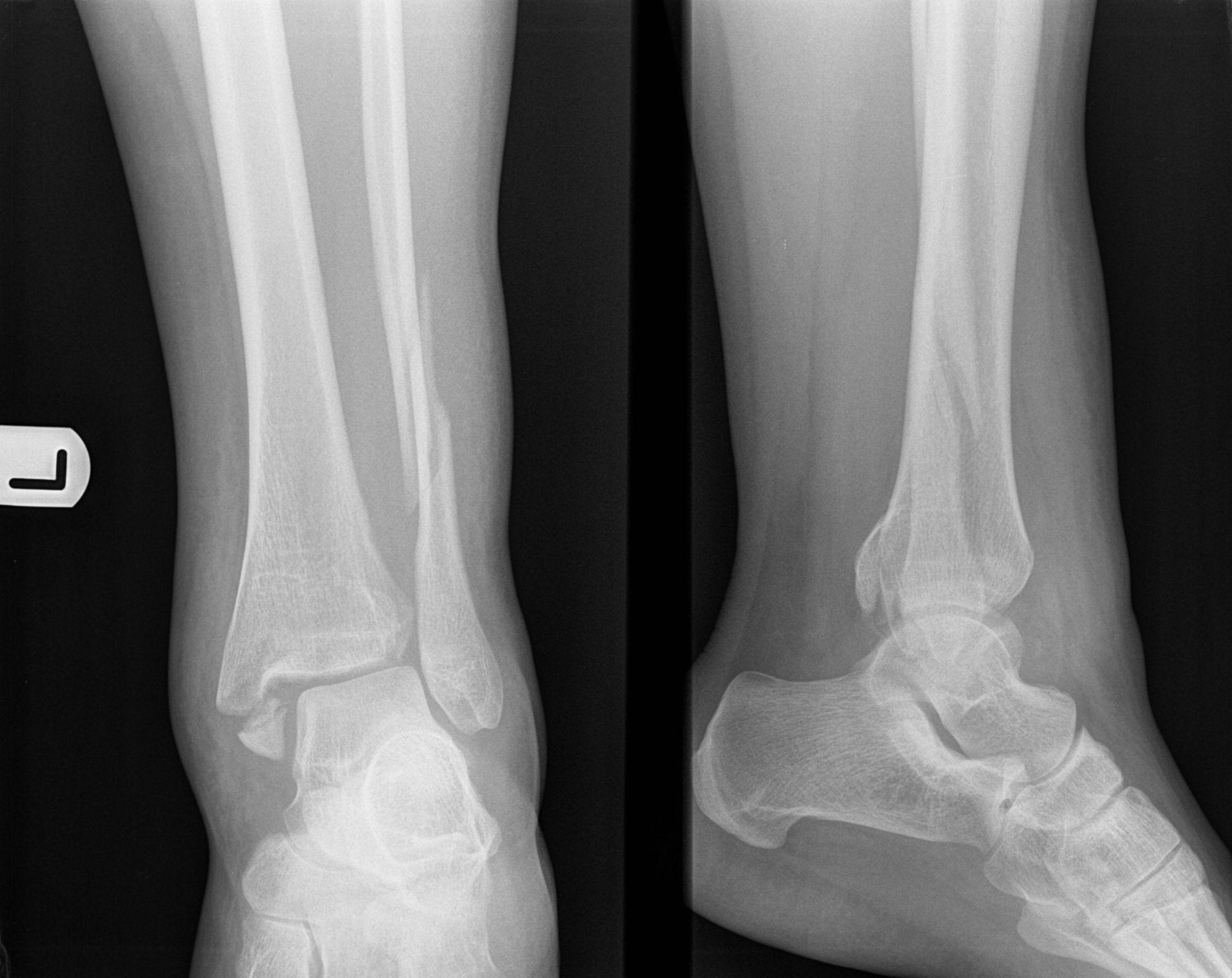 Frattura della caviglia C secondo la classificazione di WEBER