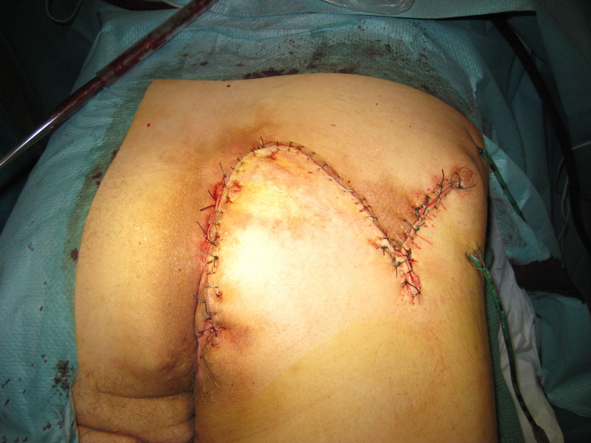 Akne inversa( Hidradenitis suppurativa)