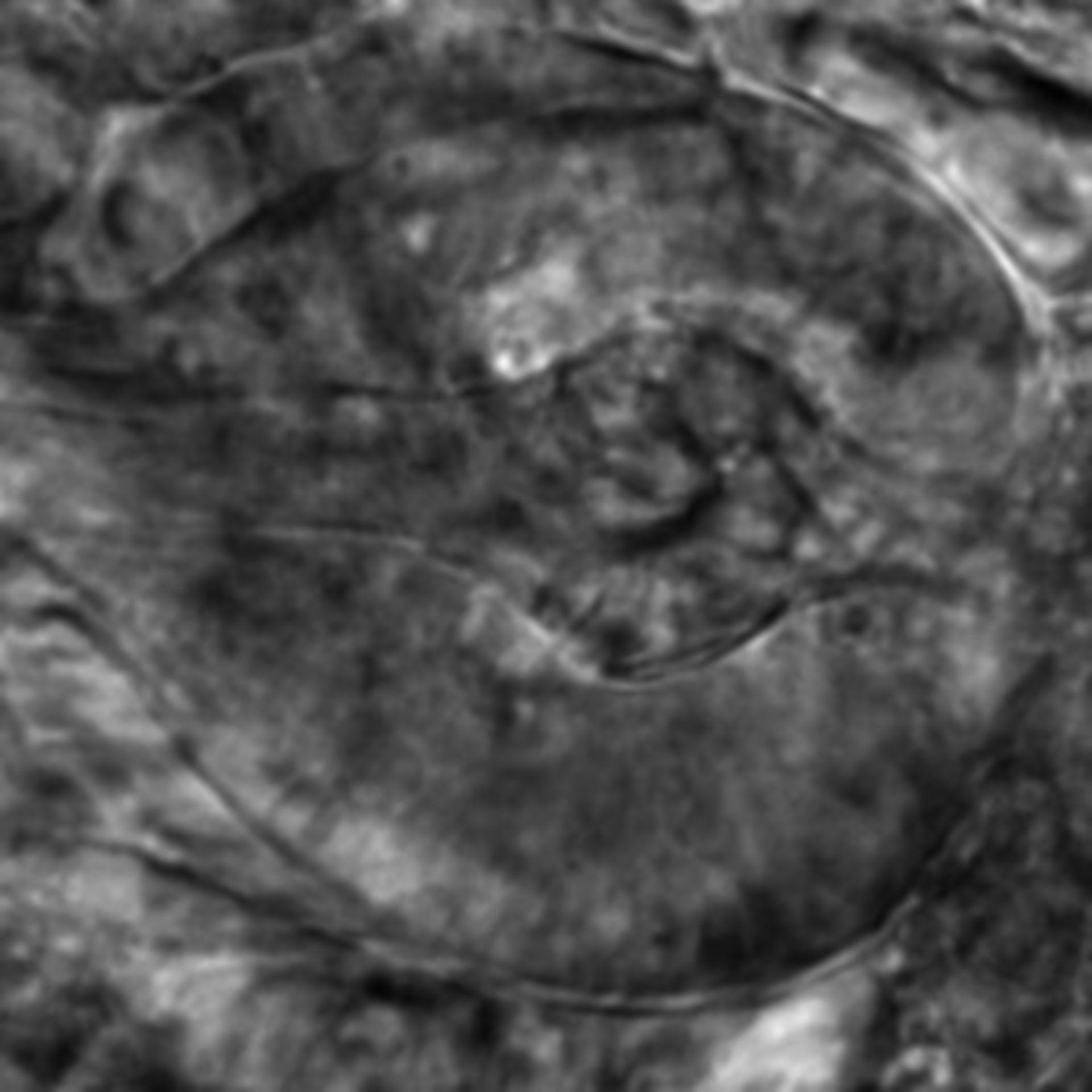 Caenorhabditis elegans - CIL:2631