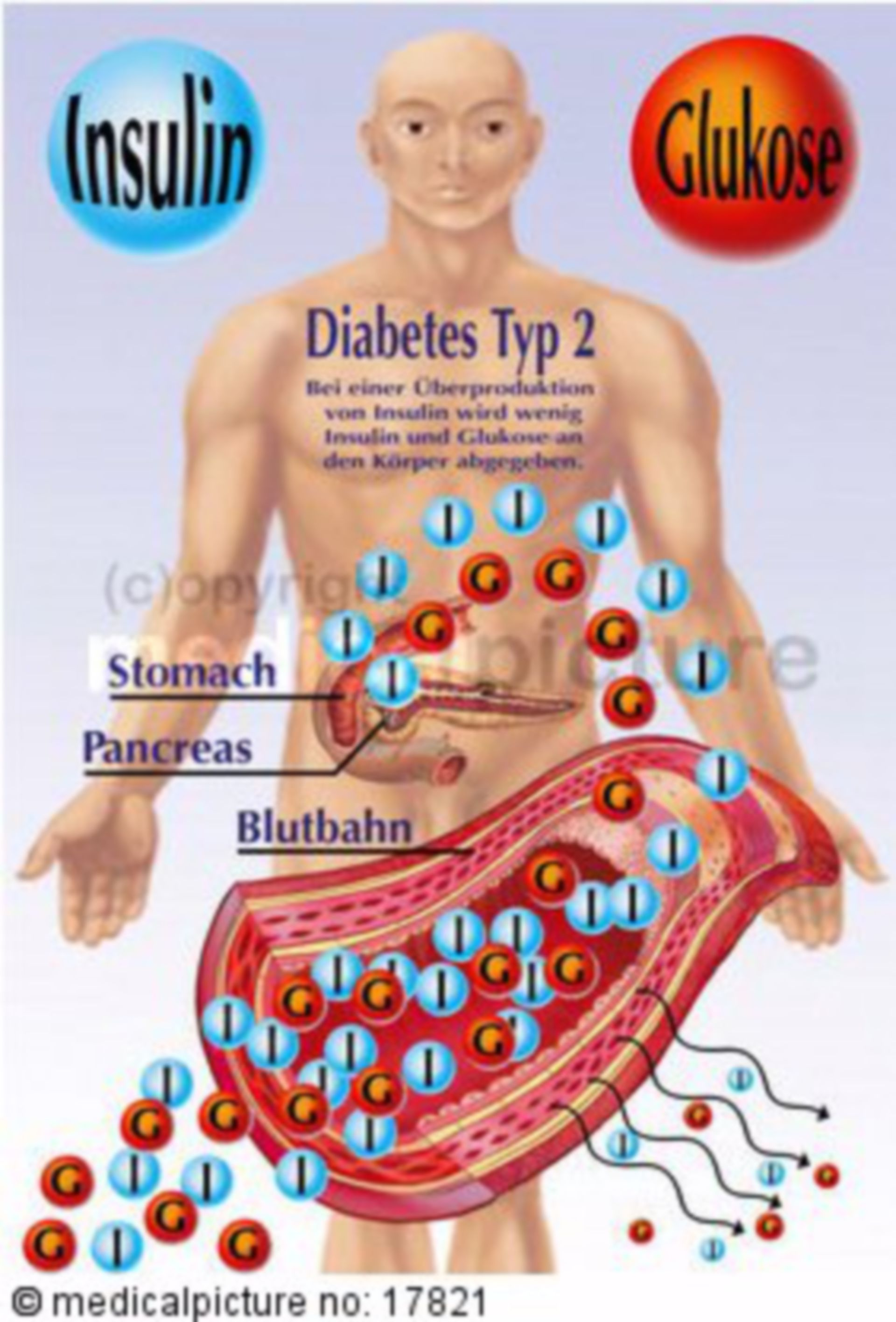 Insulin Secretion with Type-2 Diabetes