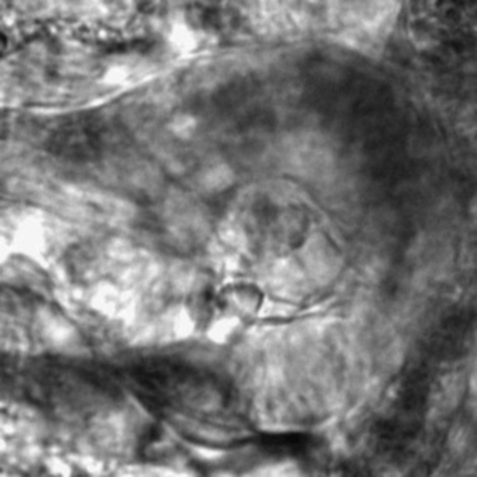 Caenorhabditis elegans - CIL:2834