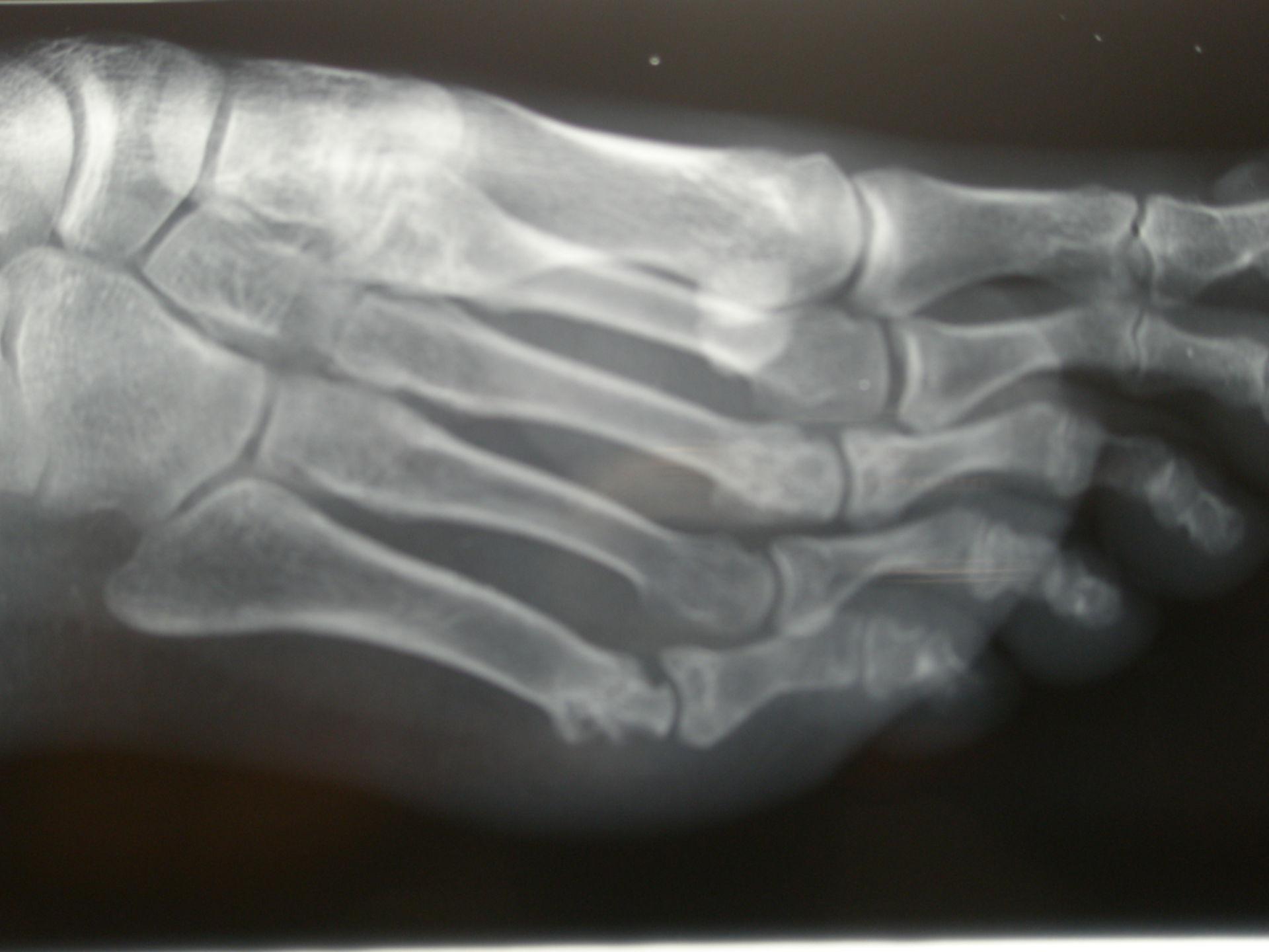 Erosion des fünften Mittelfußknochens bei rheumatoider Arthritis