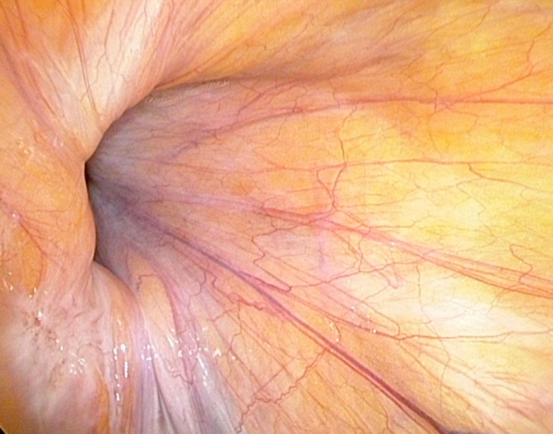 Inguinal hernia (right) - laparoscopy