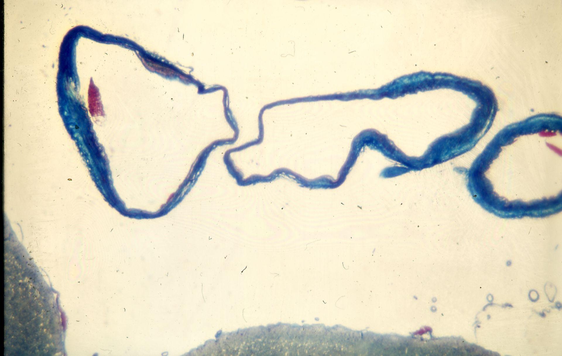 Venen Hypertension Arachnoidea