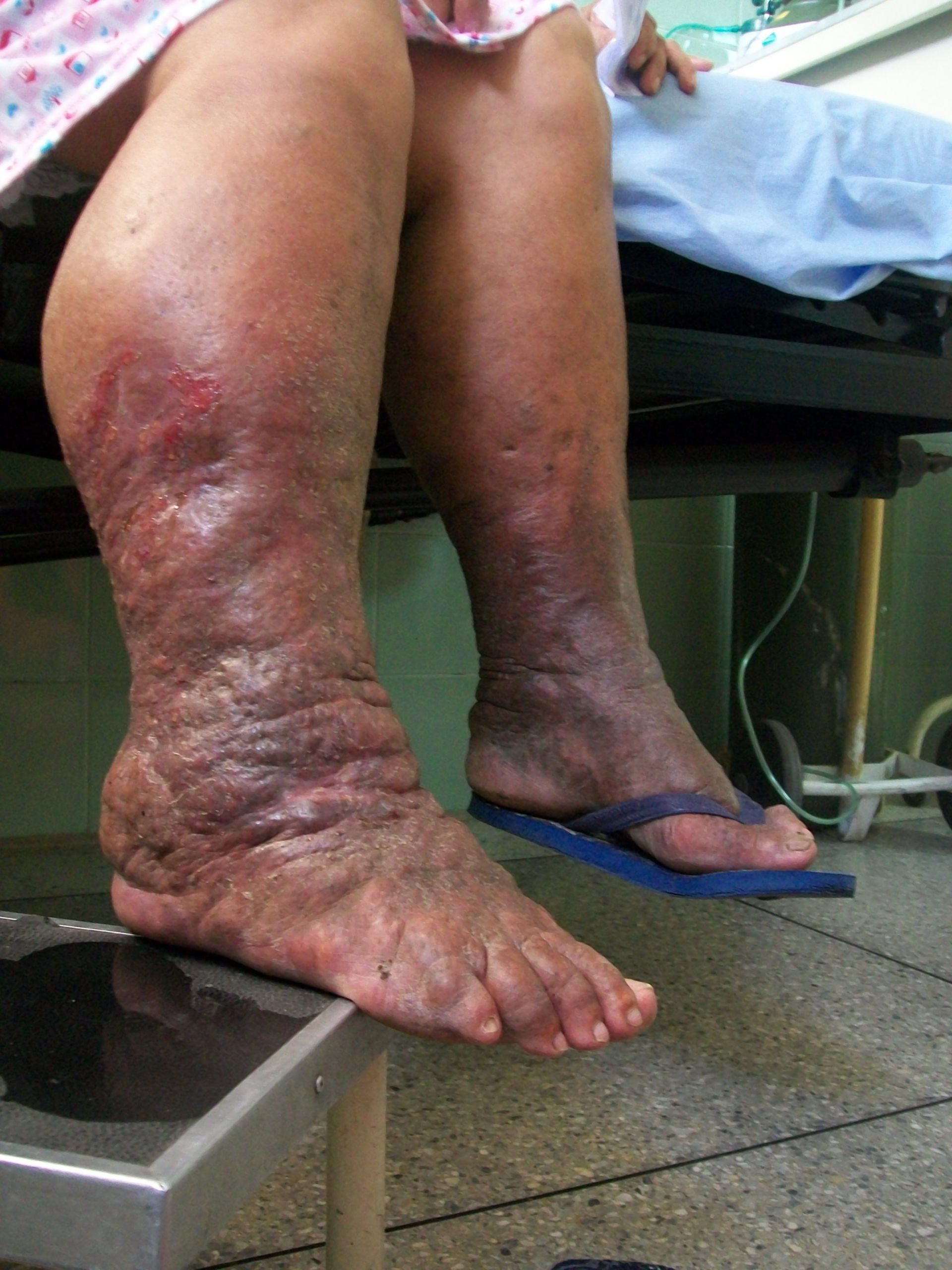 Lymphedema, 67 year old female patient