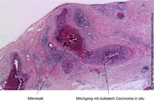 Nach Gewebeprobeentnahme zeigen sich in der feingeweblichen Aufarbeitung die mit Tumorzellen ausgefüllten Michdrüsengänge; dazwischen lassen sich Mikroverkalkungen (Pfeil) erkennen. © Referenzzentrum Mammographie