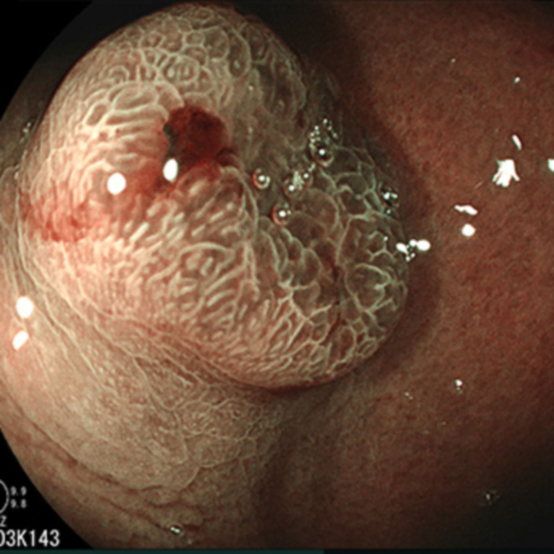 Gastric cancer imaged with BLI for visualization of the mucosal surface and vascular pattern network