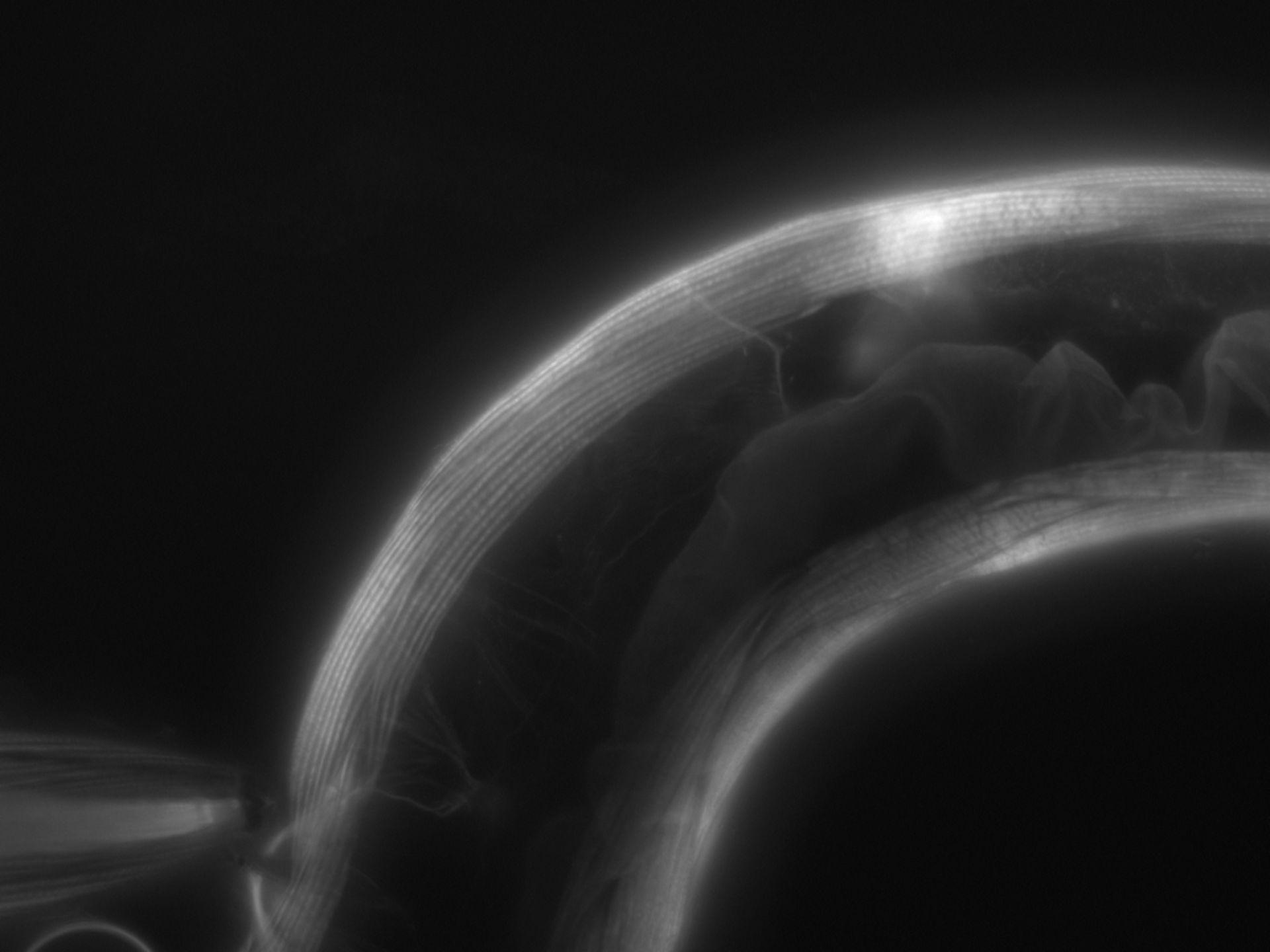 Caenorhabditis elegans (Actin filament) - CIL:1070
