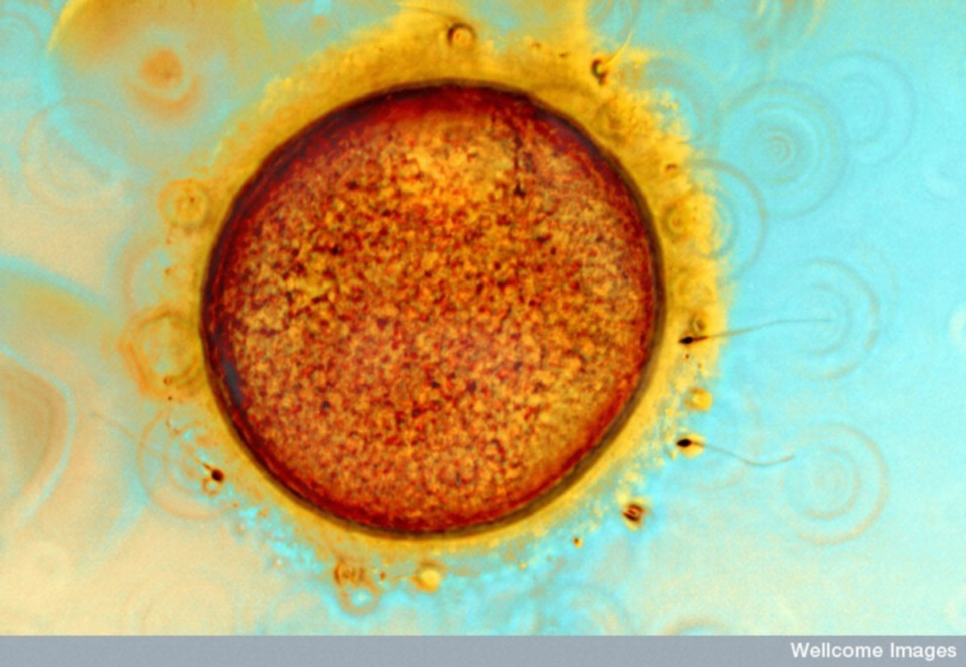 Egg and Sperm! Image of the Week - May 7, 2018 - CIL:39092 - http://cellimagelibrary.org/images/39092