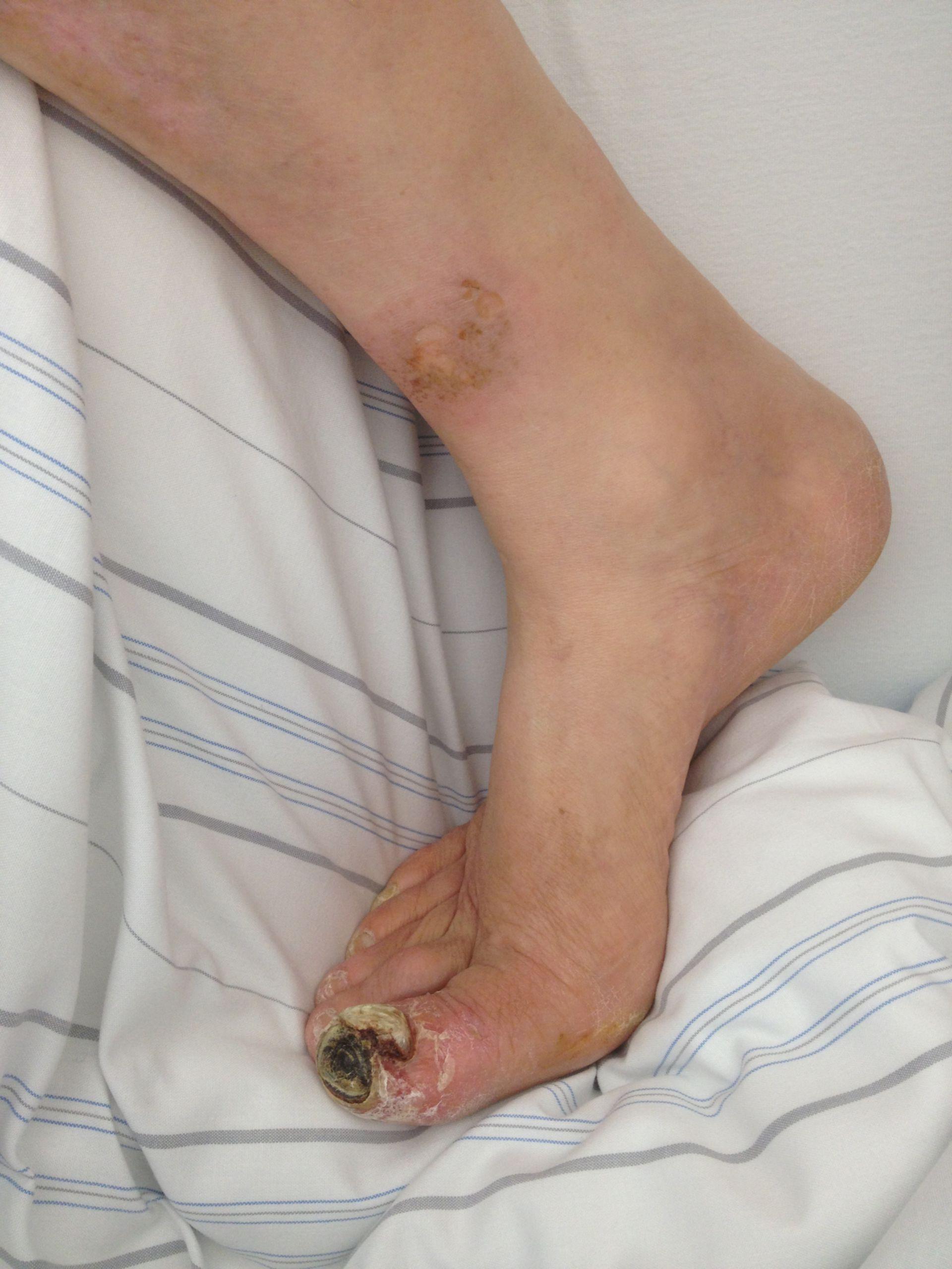 Necrosis gangrenosa en un pie diabético