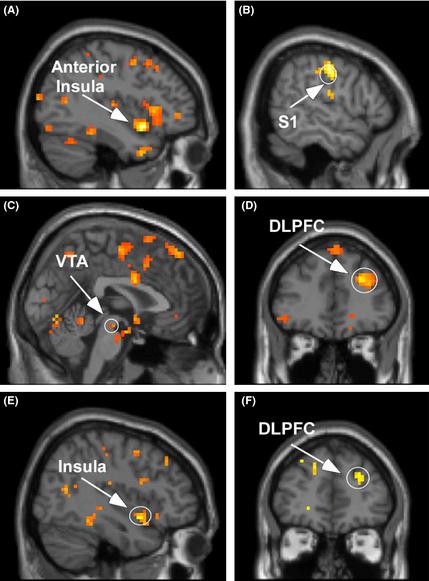 Gehirnaktivitäten bei Hochsensibilität