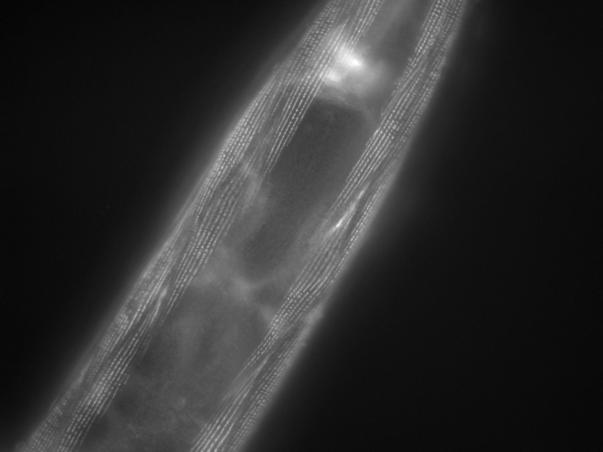 Caenorhabditis elegans (Actin filament) - CIL:1175