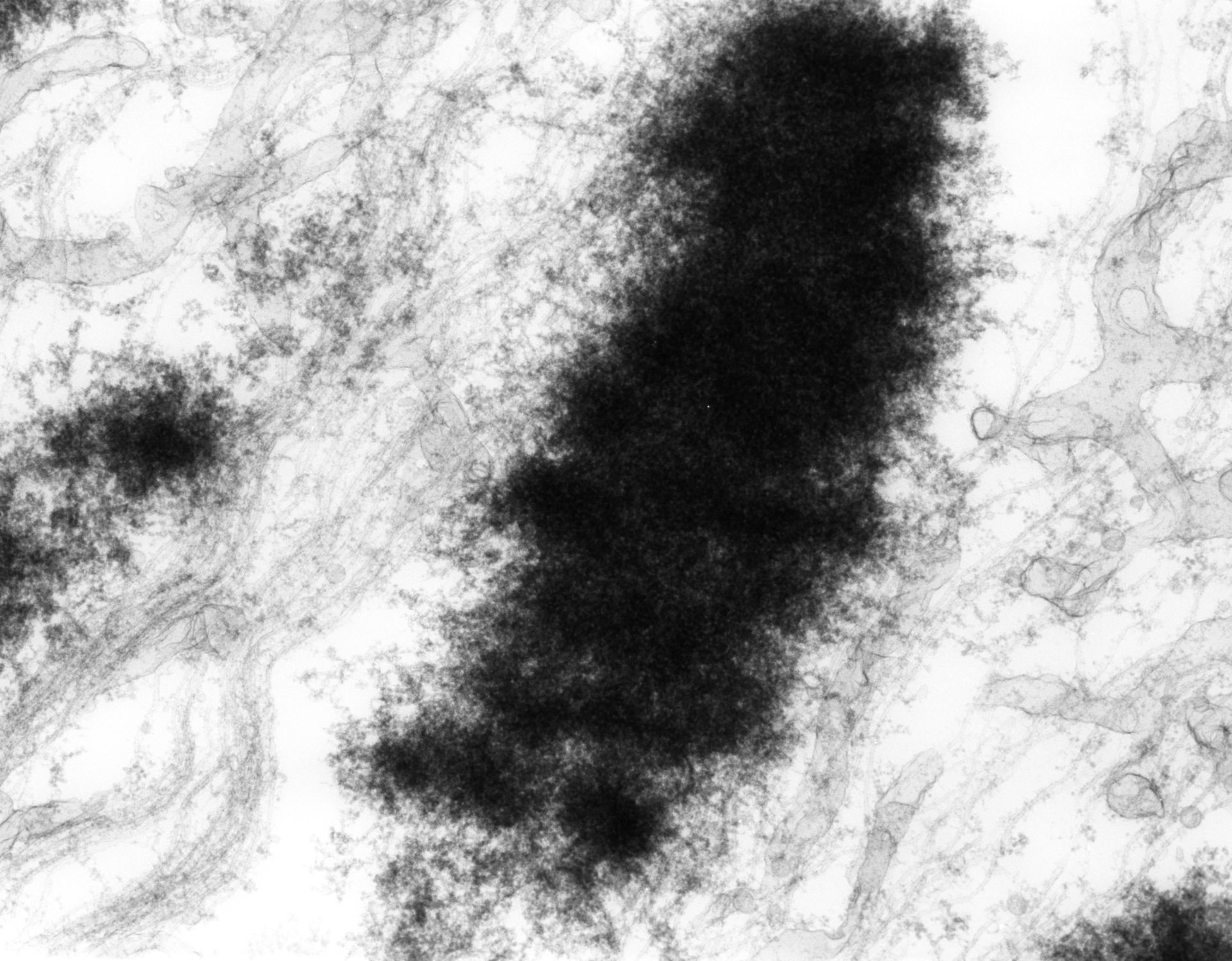 Haemanthus katharinae (Nuclear chromosome) - CIL:11856