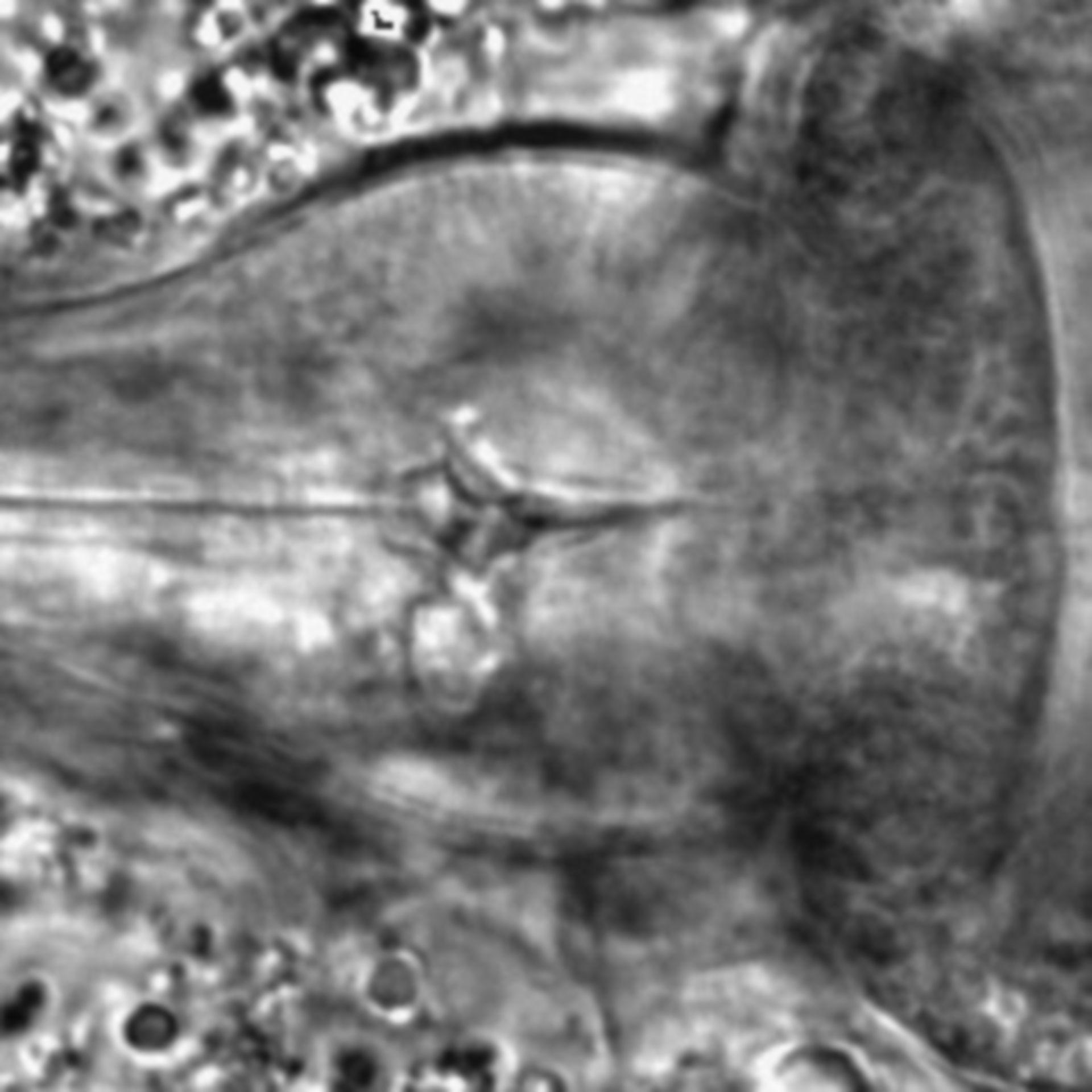 Caenorhabditis elegans - CIL:1743
