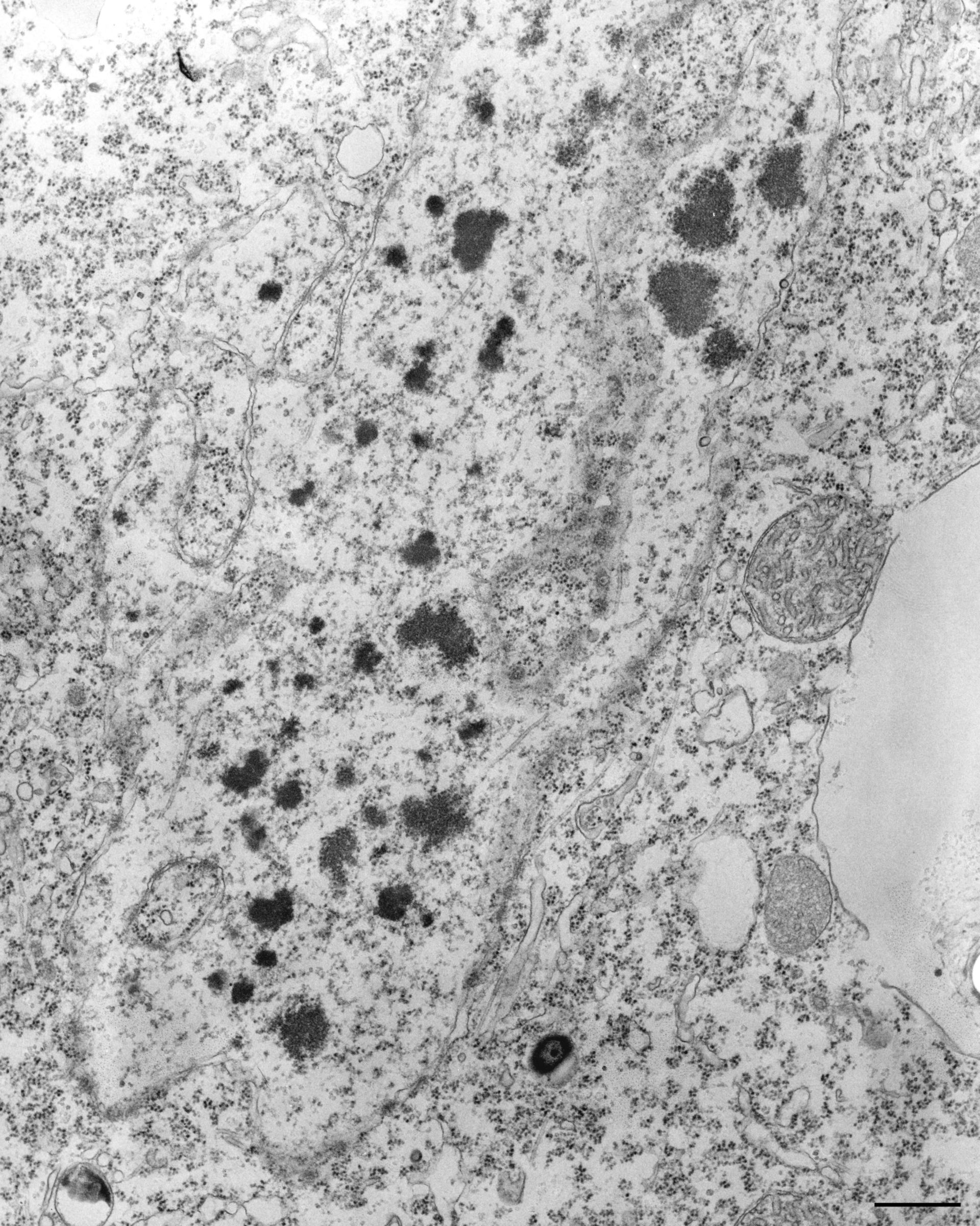 Tetrahymena pyriformis (membrana nucleare) - CIL:34614