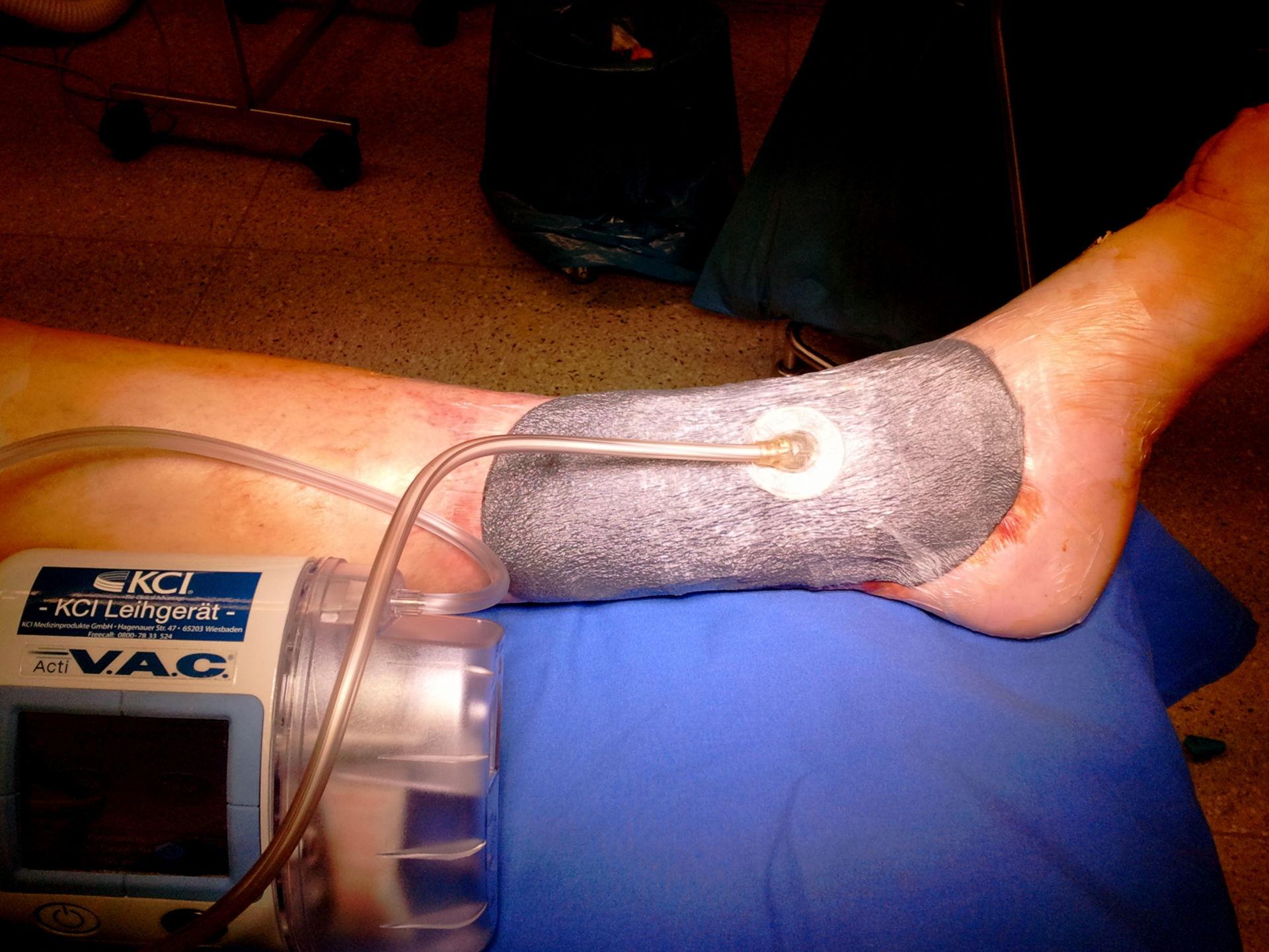 Trattamento della ulcera della gamba (ulcus cruris)