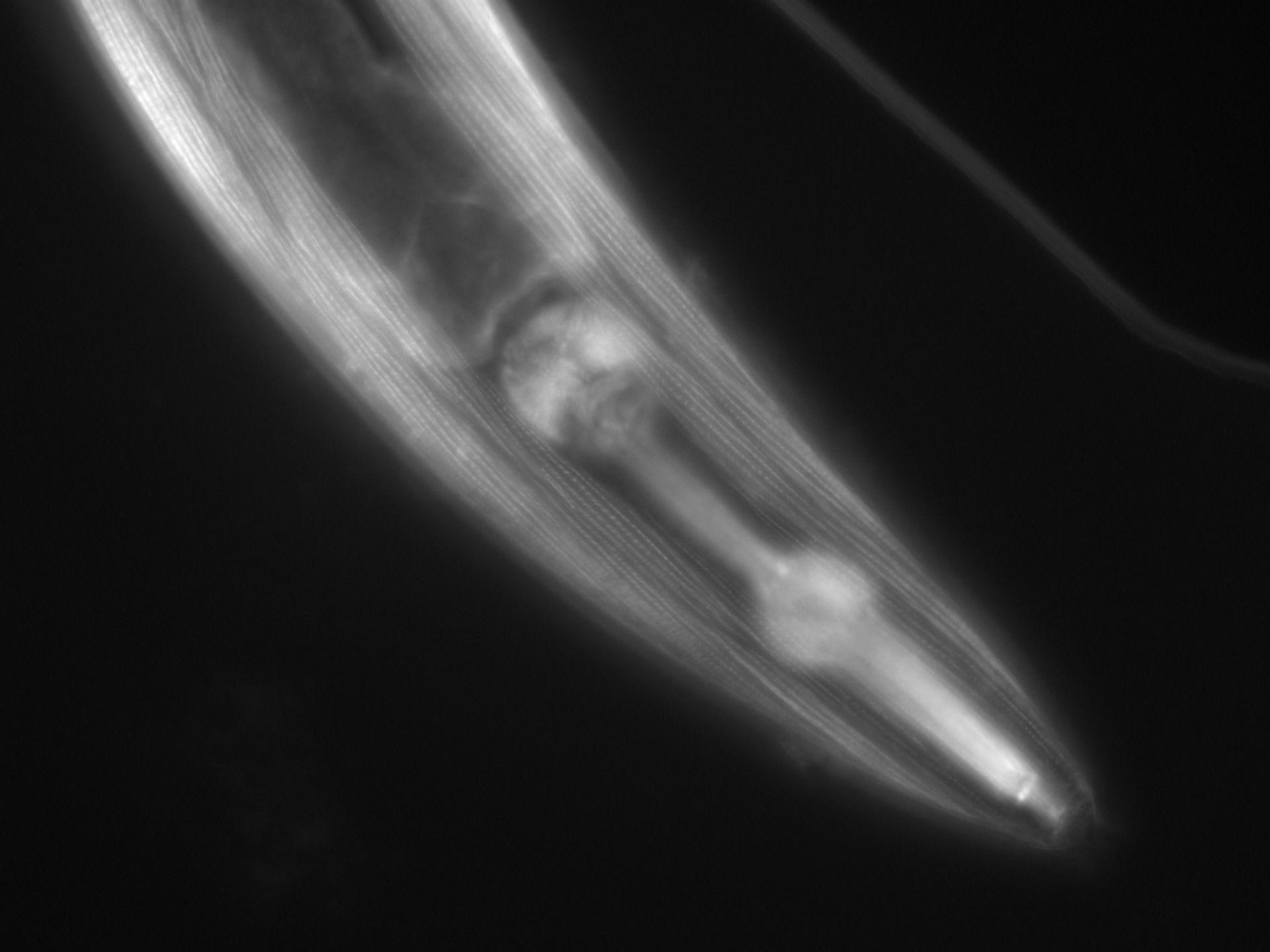 Caenorhabditis elegans (Actin filament) - CIL:1065