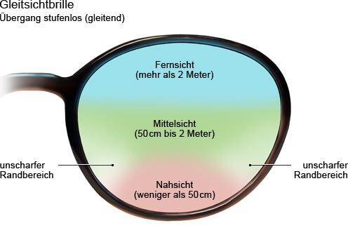 auge_alterssichtigkeit_multifokalbrille_