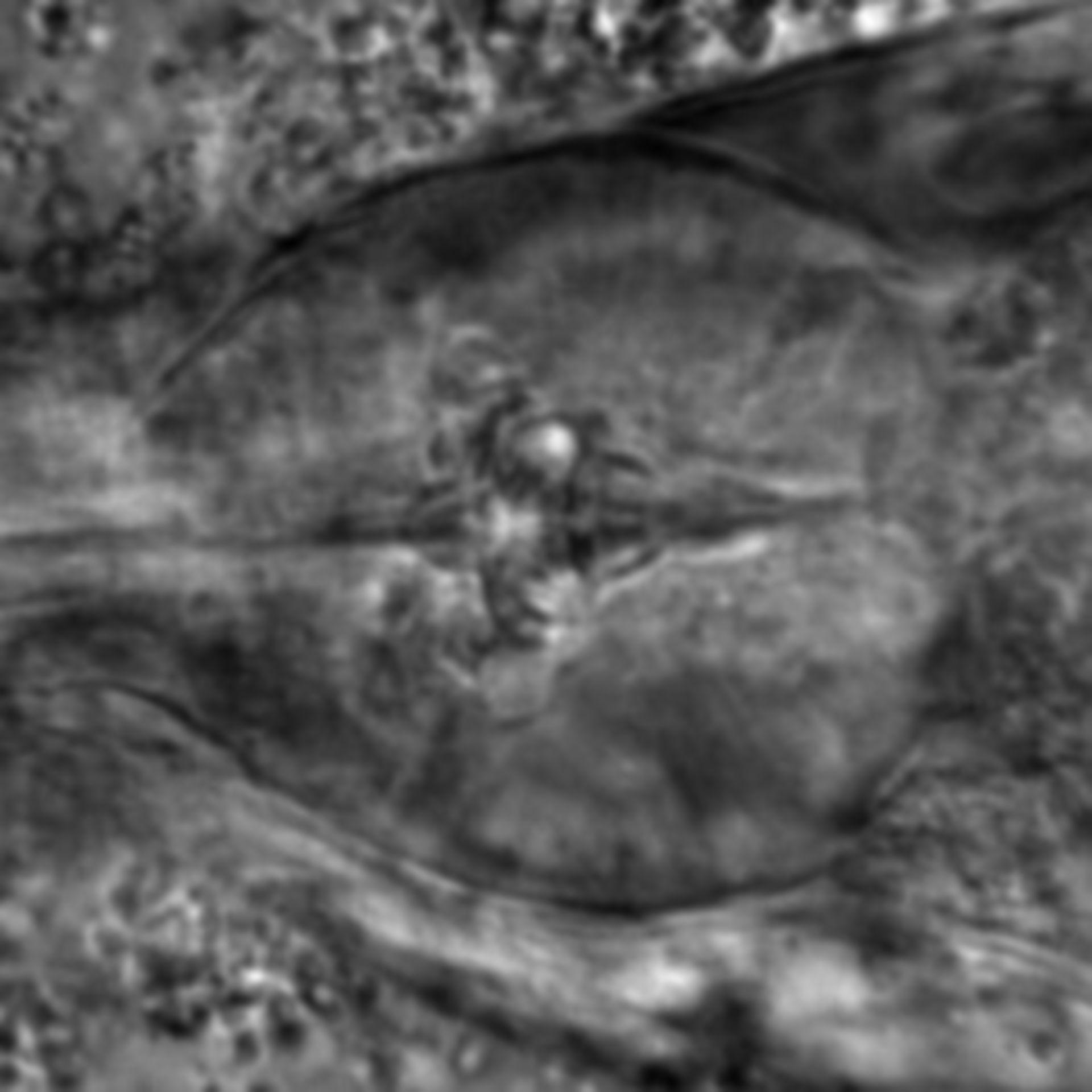 Caenorhabditis elegans - CIL:1923
