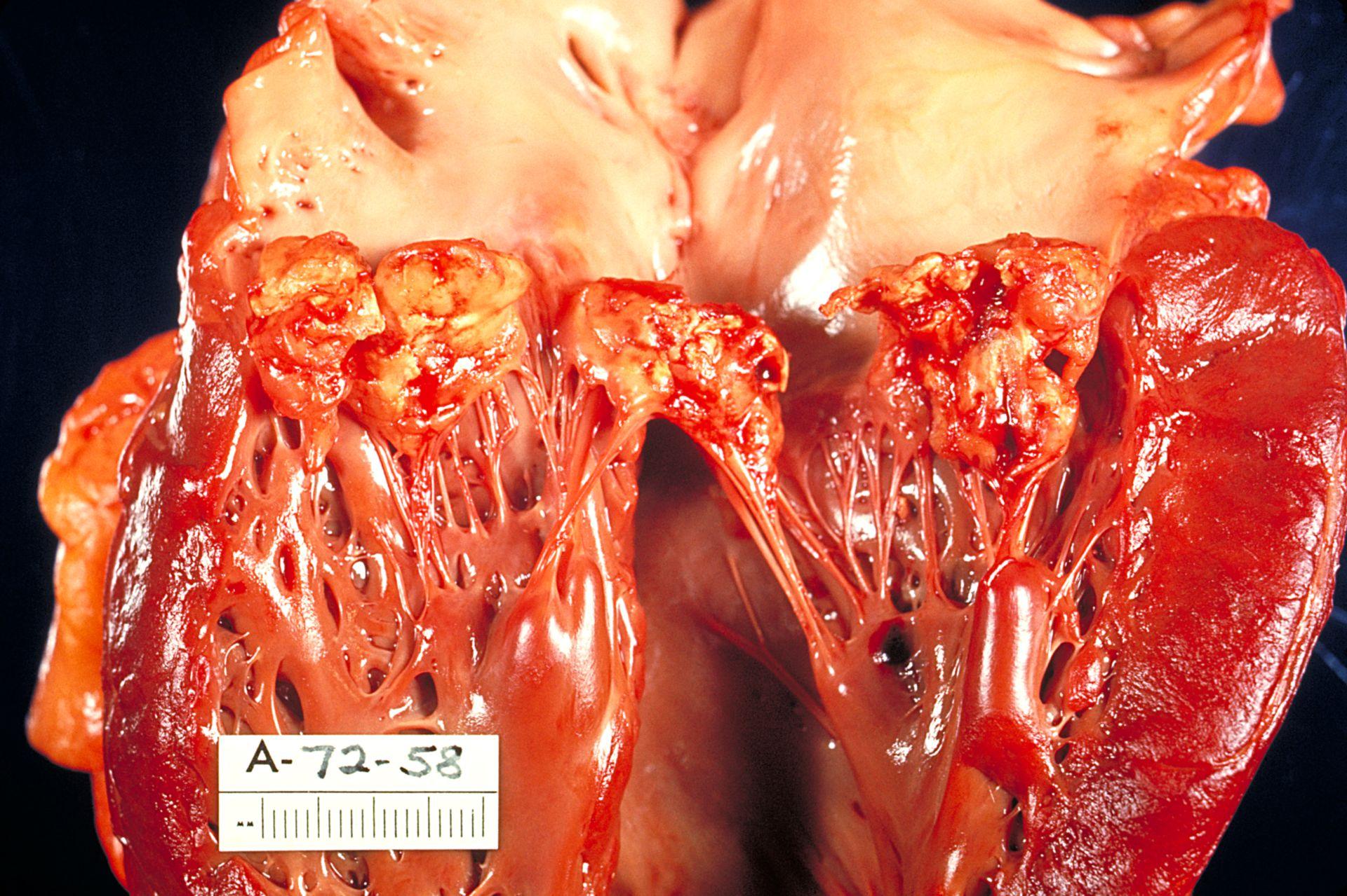 Subacute bacterial endocarditis involving mitral valve