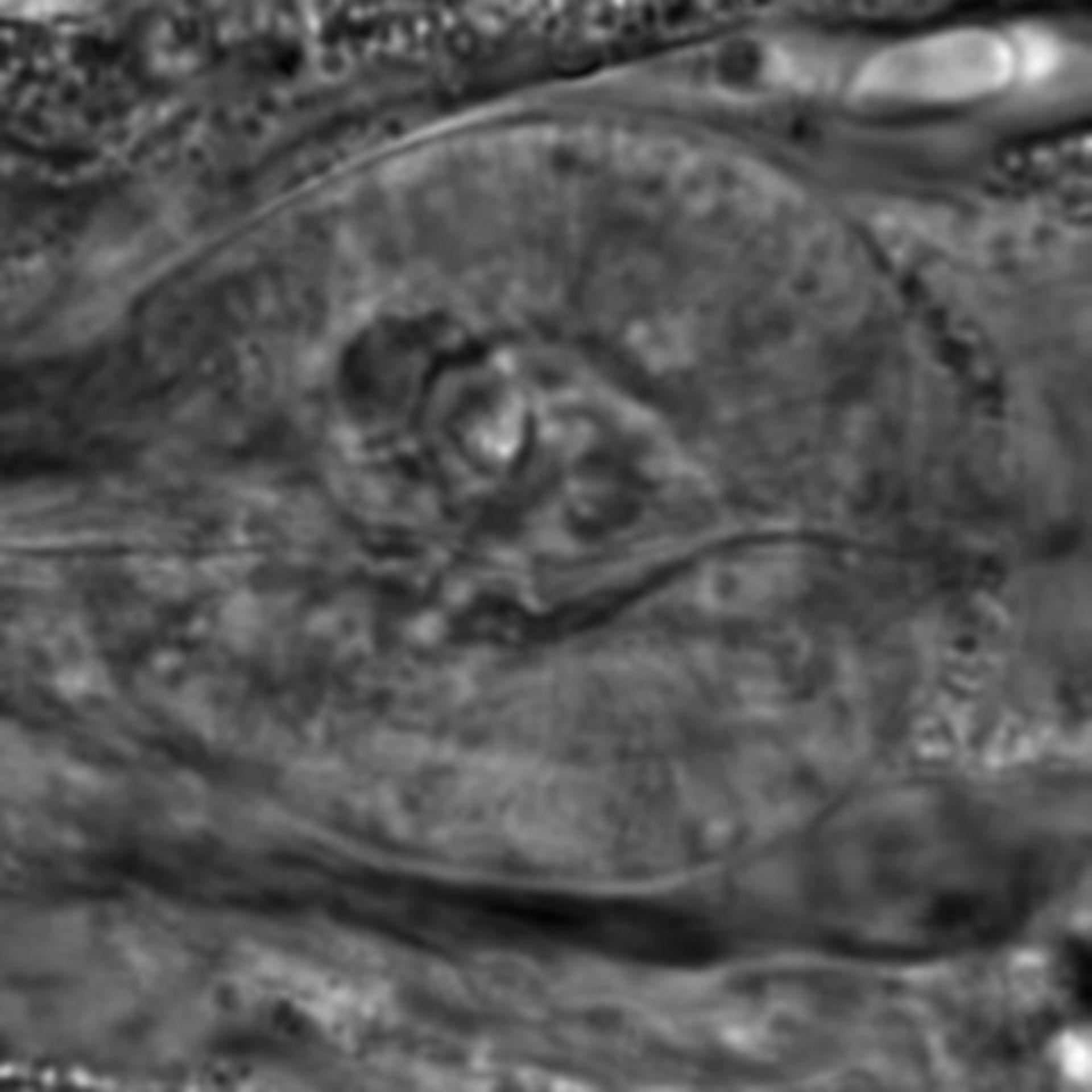 Caenorhabditis elegans - CIL:2215