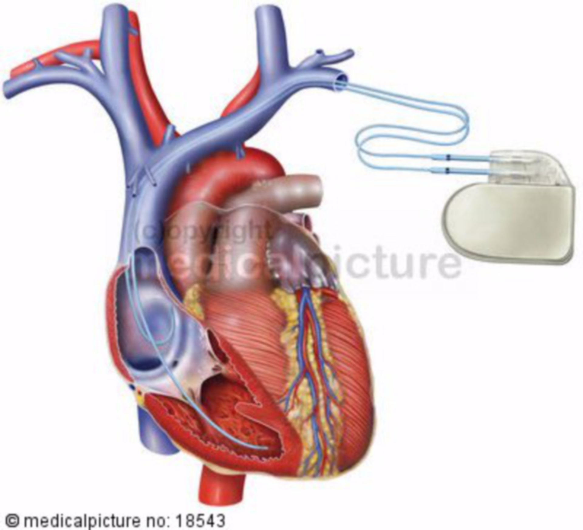 Cuore con pacemaker (2)