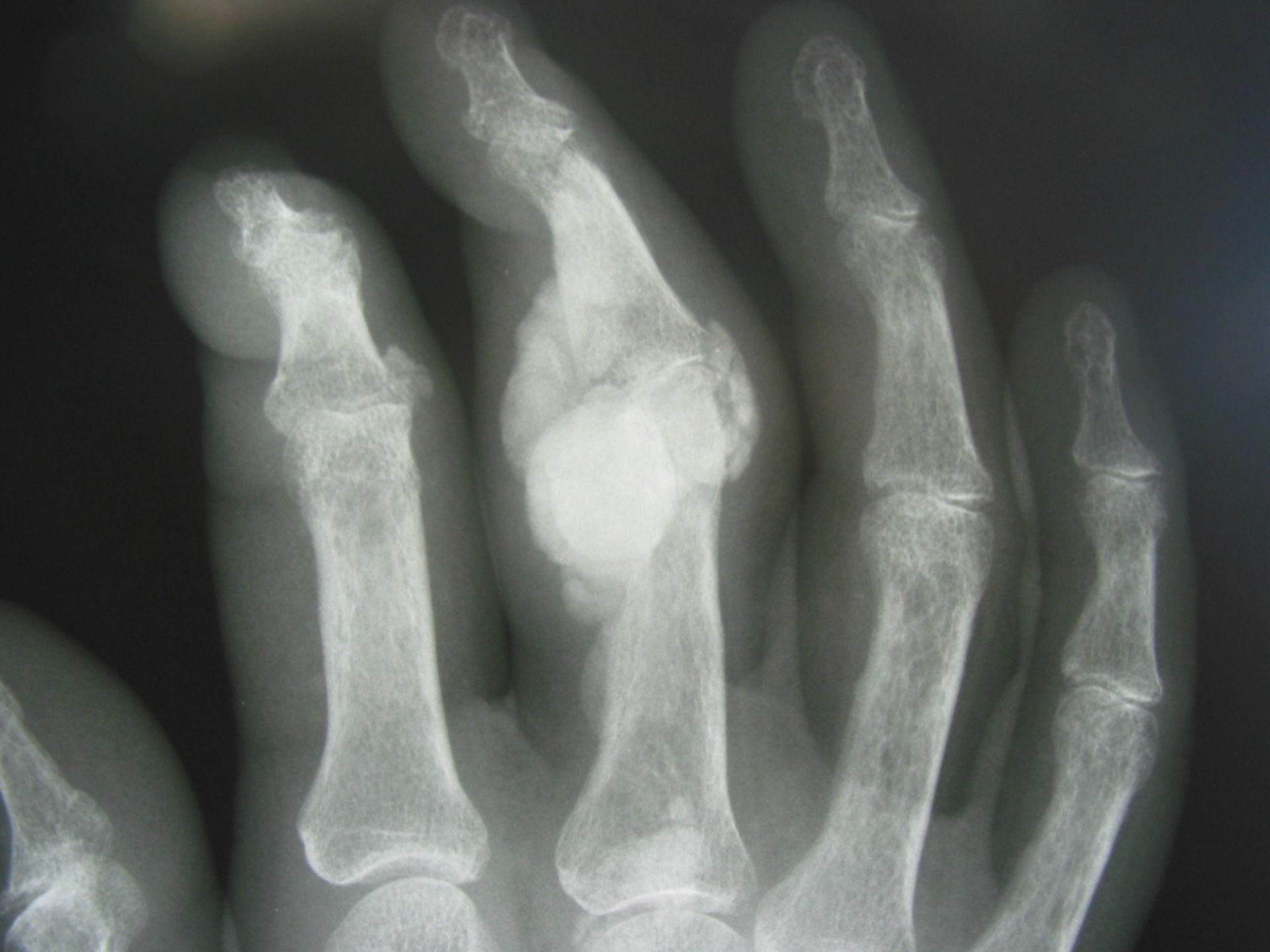 Gicht Tophus Finger