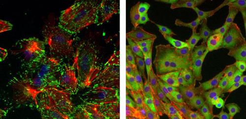 Brustepithelzellen, die eine epithelial-mesenchymale Transition (EMT) durchlaufen haben (oberes Bild), zeigen eine Änderung der Zellmorphologie mit Aktin-Stressfasern (rot) und mit fokussierten Zelladhäsionspunkten (grün). Brustepithelzellen, denen der Sox4-Transkriptionsfaktor fehlt (unteres Bild), zeigen diese Veränderung nicht, können nicht wandern und bilden keine Metastasen. © Foto: Dr. Nathalie Meyer-Schaller, Universität Basel