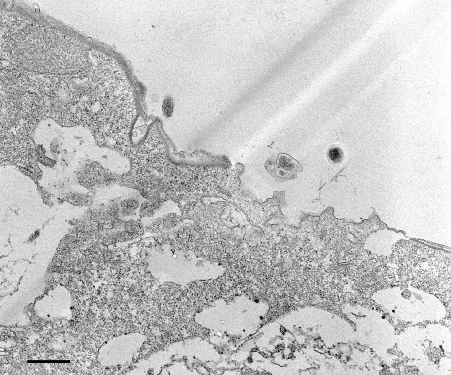 Colpoda cucullus (Cytoproct) - CIL:12111
