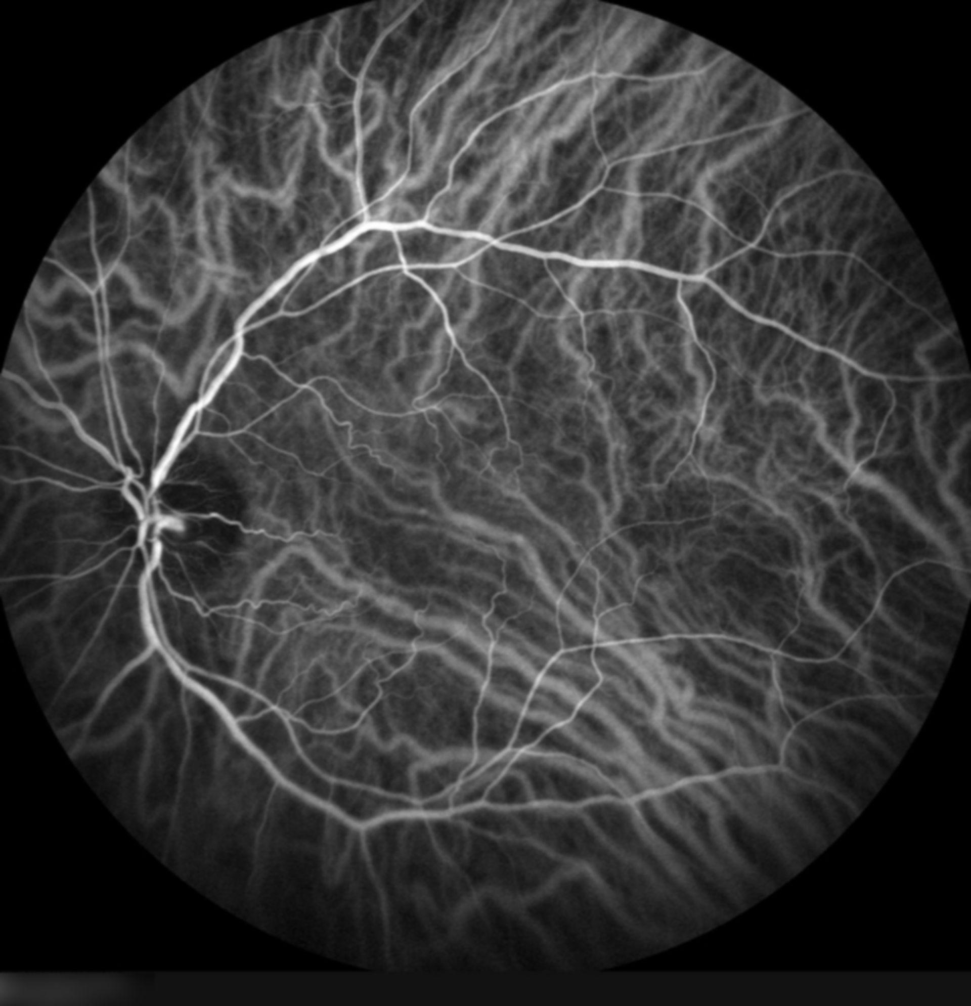 Angiografia oculare con verde indocianina (ICGA)