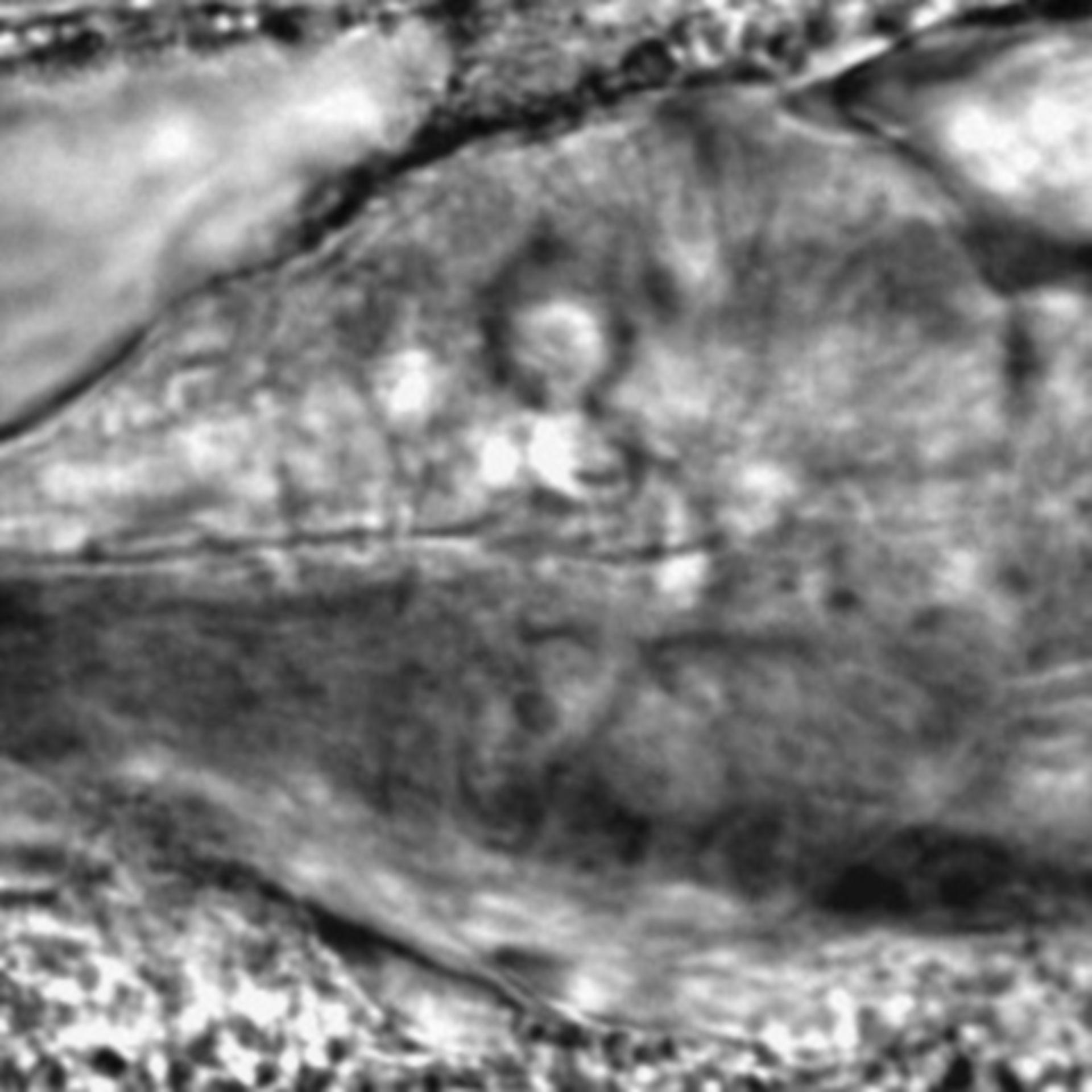 Caenorhabditis elegans - CIL:2810