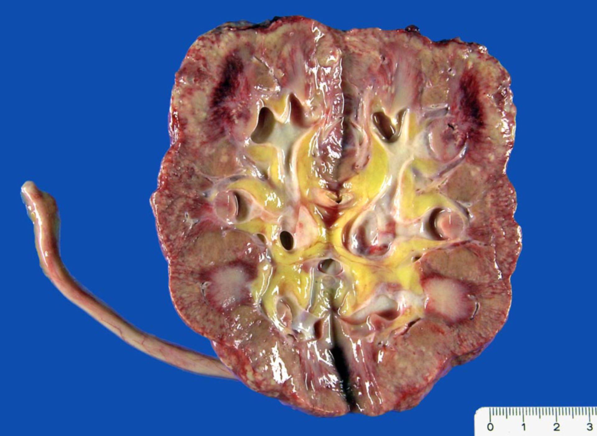 Akute Pyelonephritis (destruktive interstititelle Nephritis)